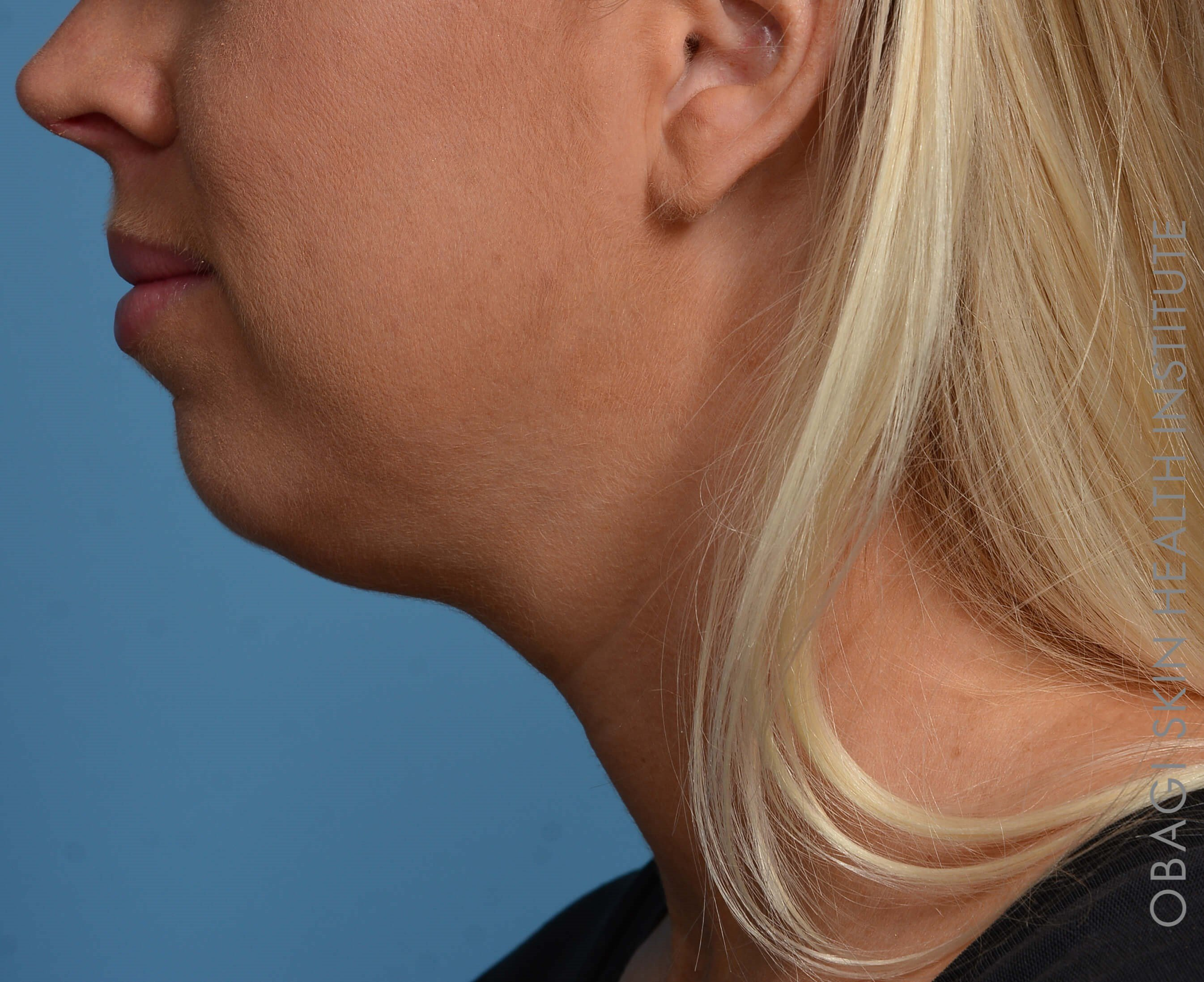 Kybella + Voluma - Left View Before Kybella + Voluma Chin