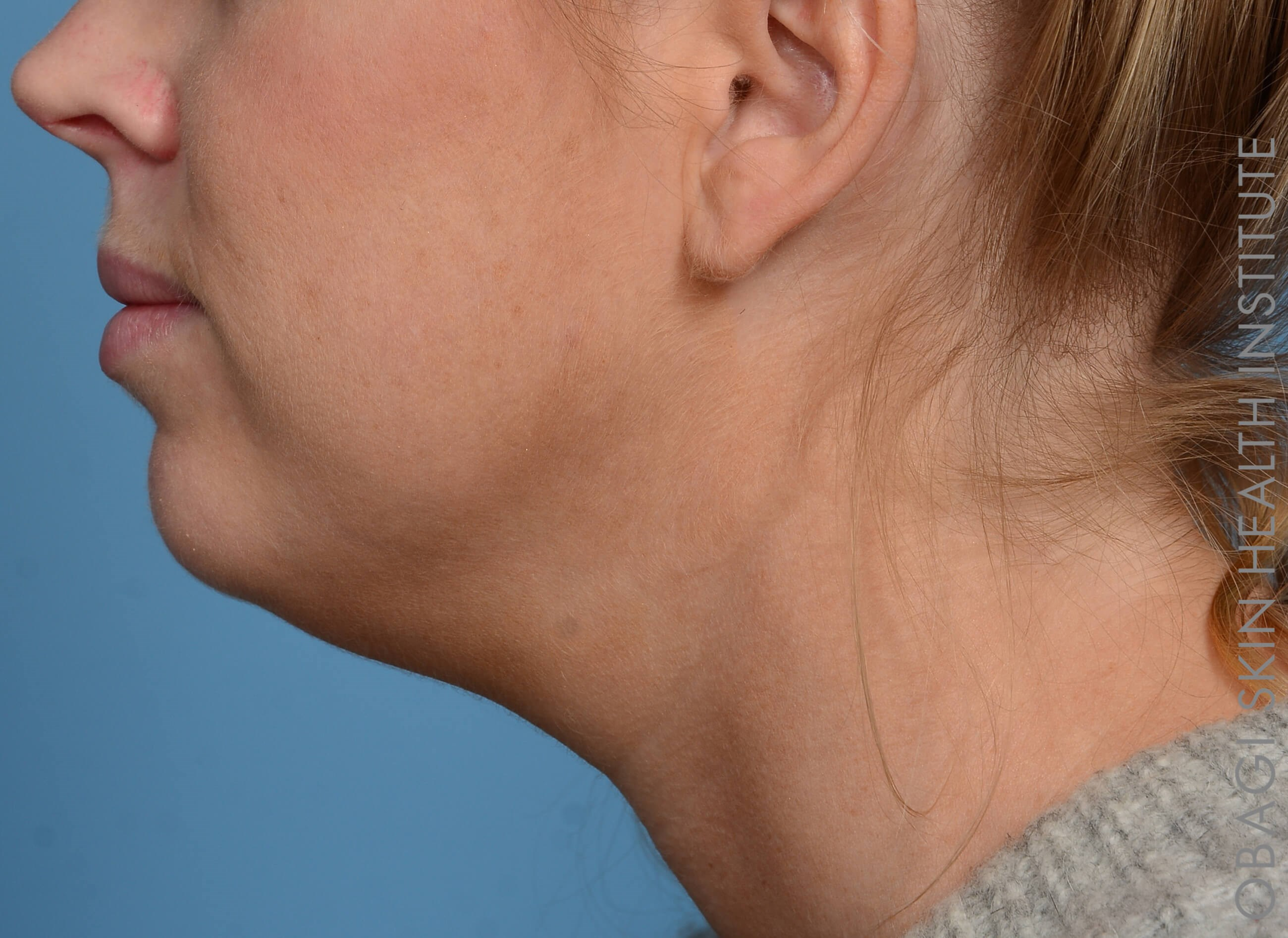 Kybella + Voluma - Left View After Kybella + Voluma Chin