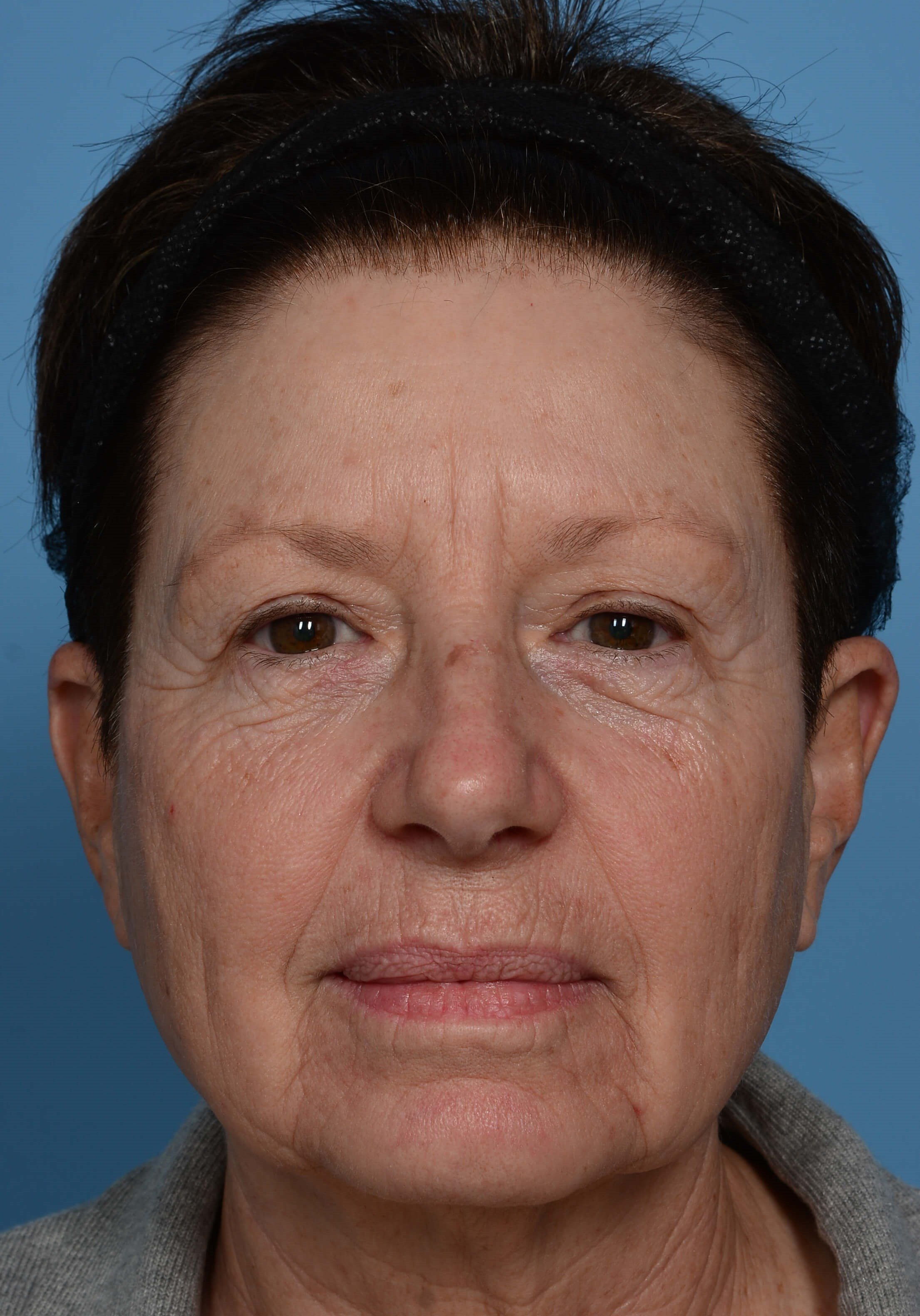 ZO® Custom Peel - Front View Before Peel + Laser Treatment