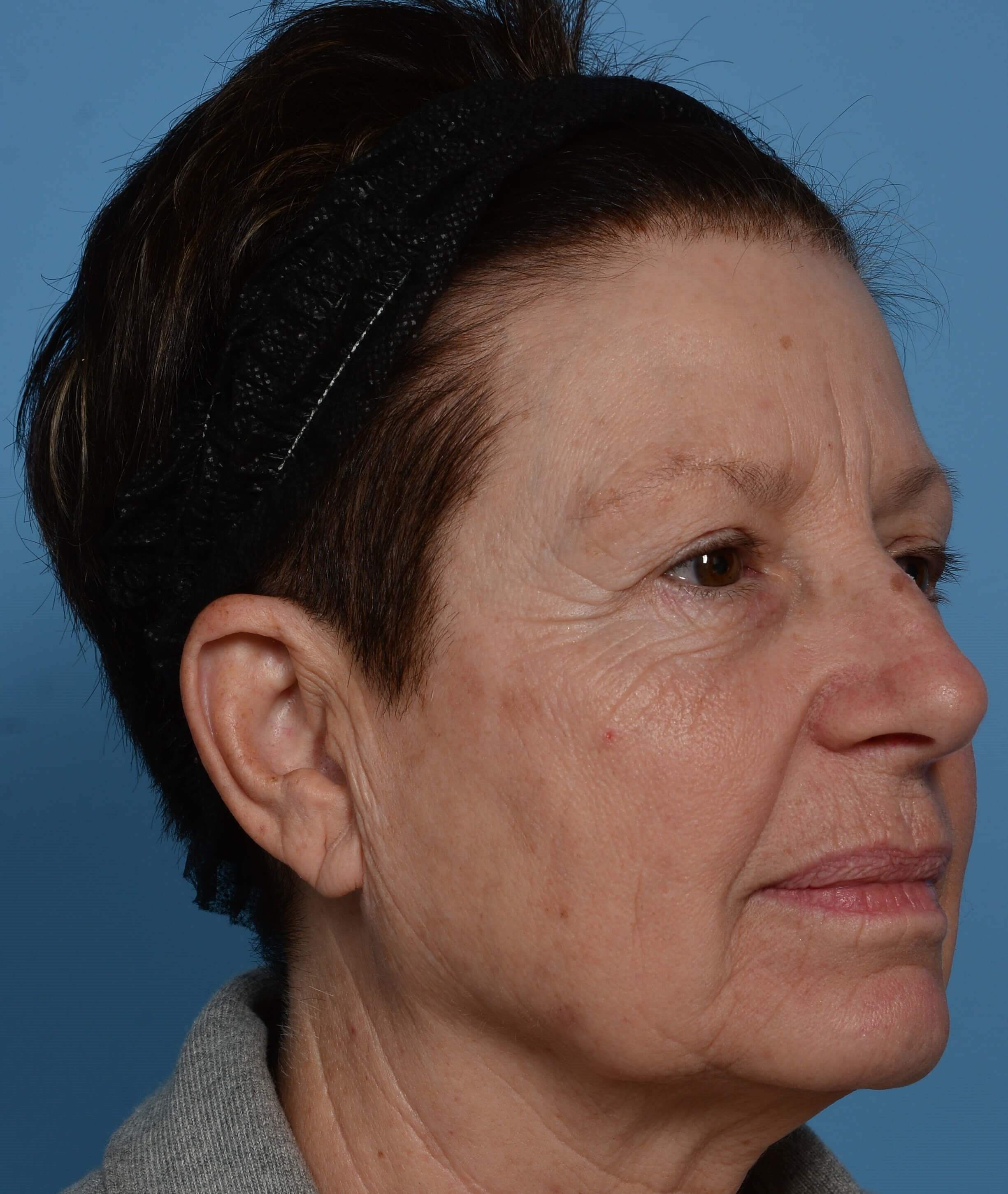 ZO® Custom Peel - Right View Before Peel + Laser Treatment