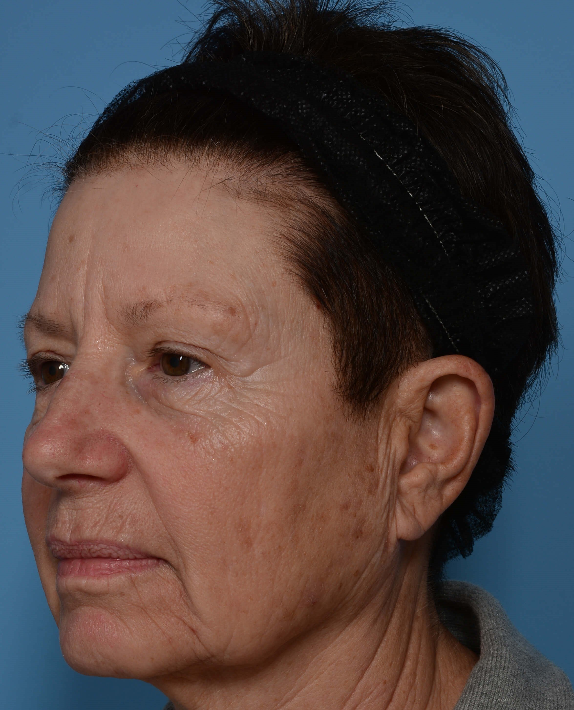ZO® Custom Peel - Left View Before Peel + Laser Treatment
