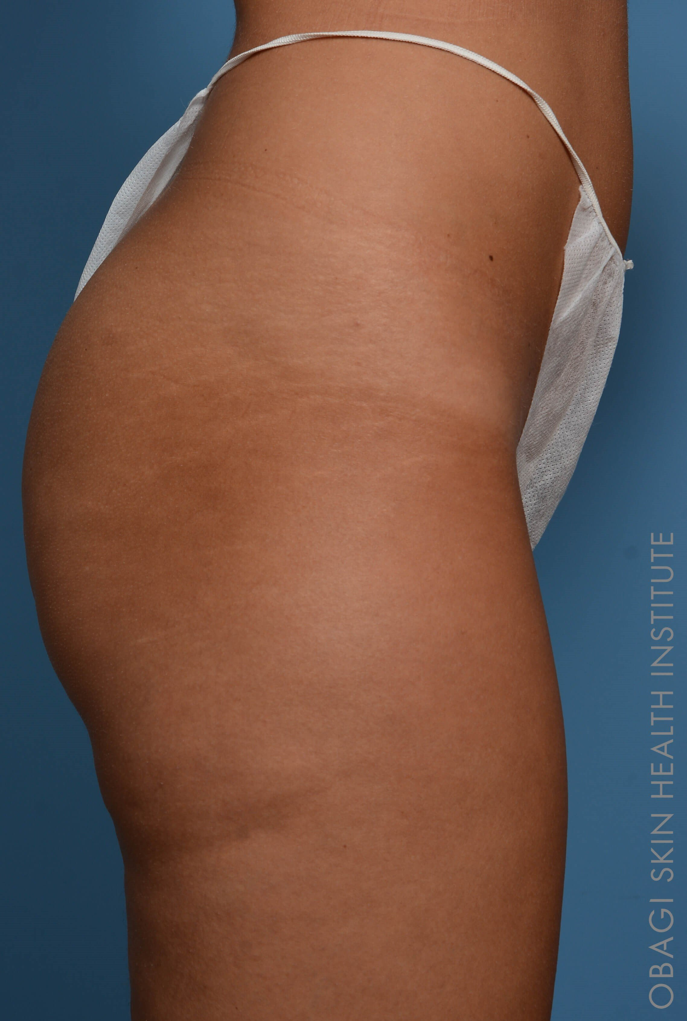 Sculptra Butt Lift - Right Before Sculptra Butt Lift