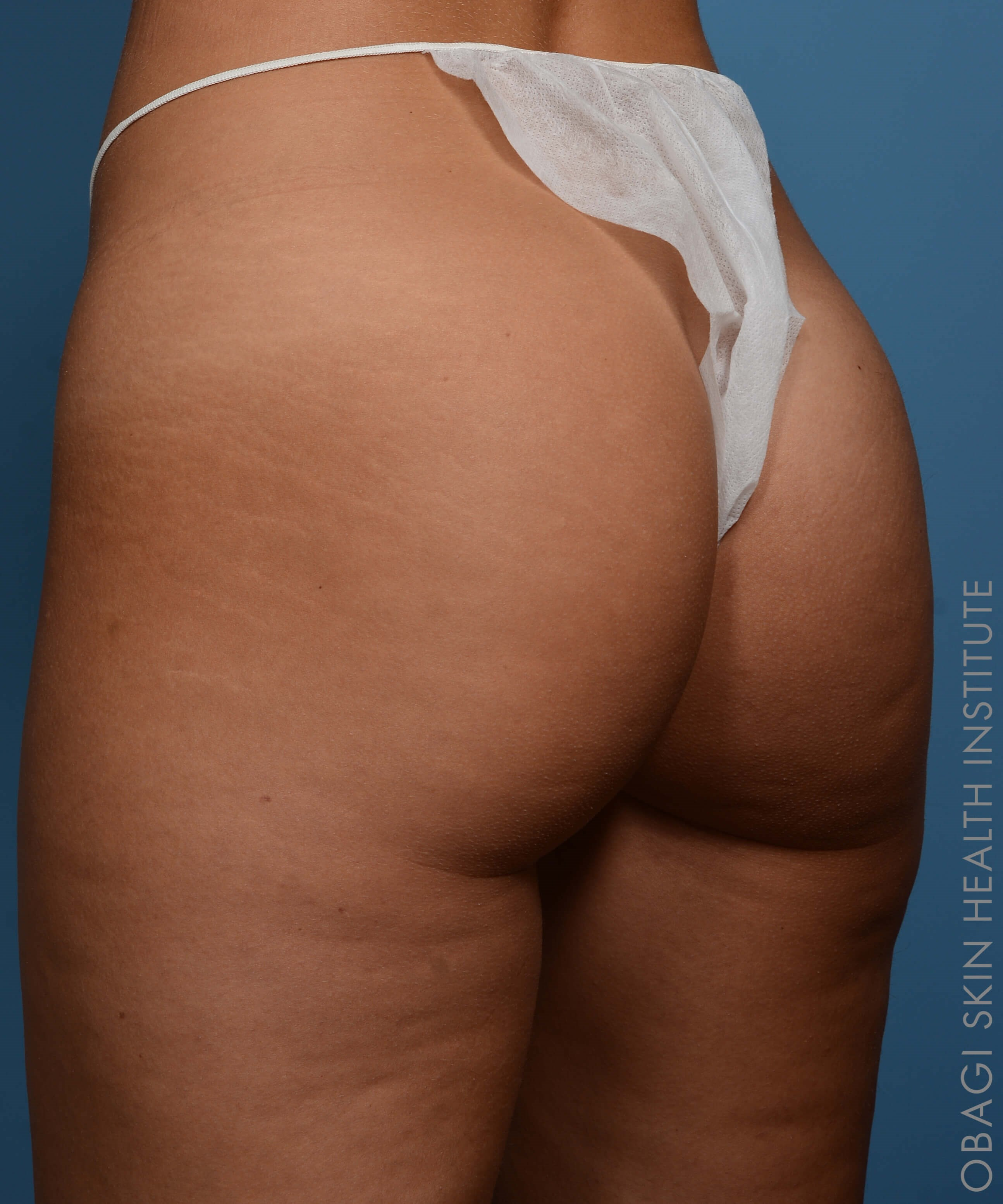 Sculptra Butt Lift - Left View Before Sculptra Butt Lift