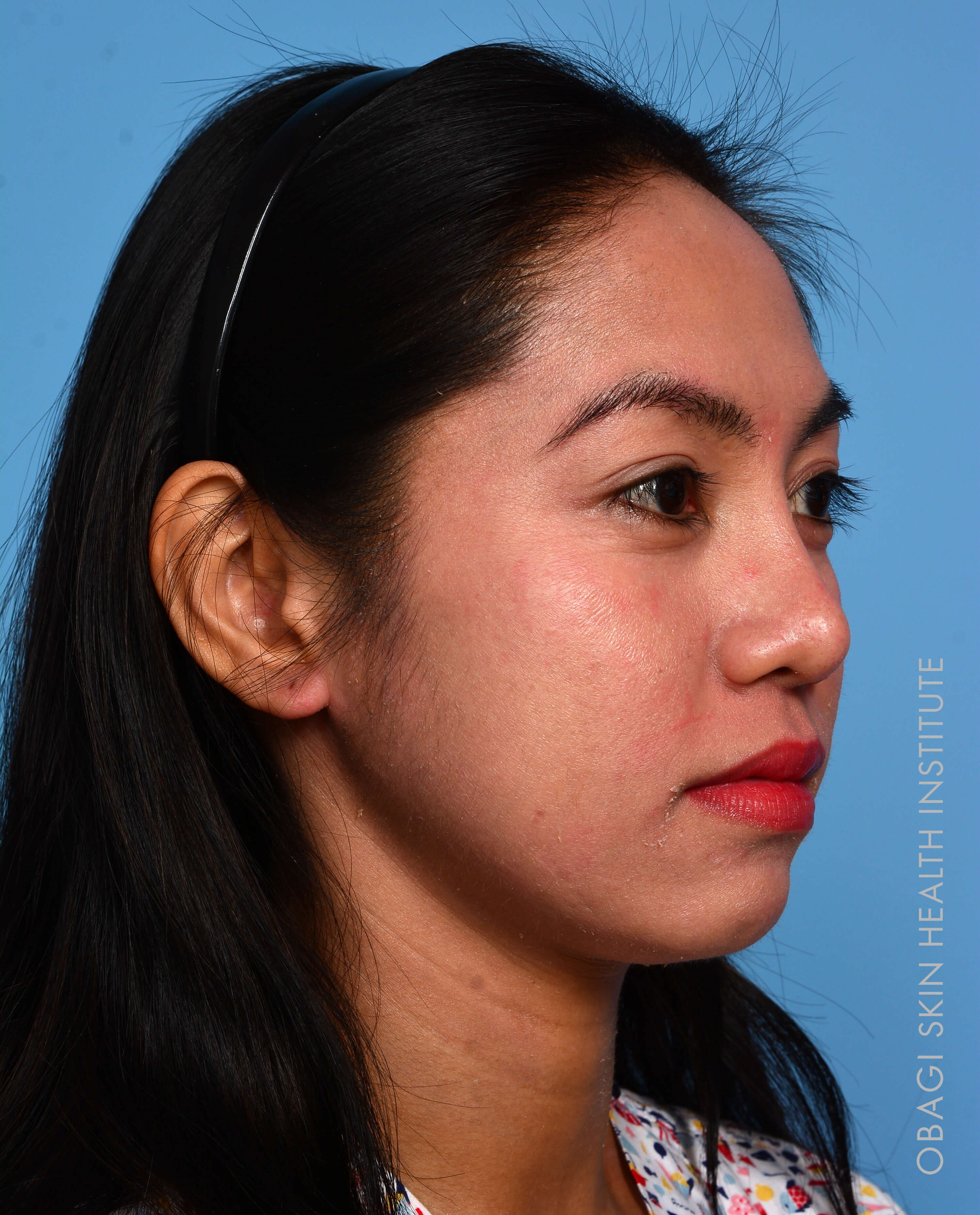 ZO® Custom Peel - Right View After Peel + Laser Treatment