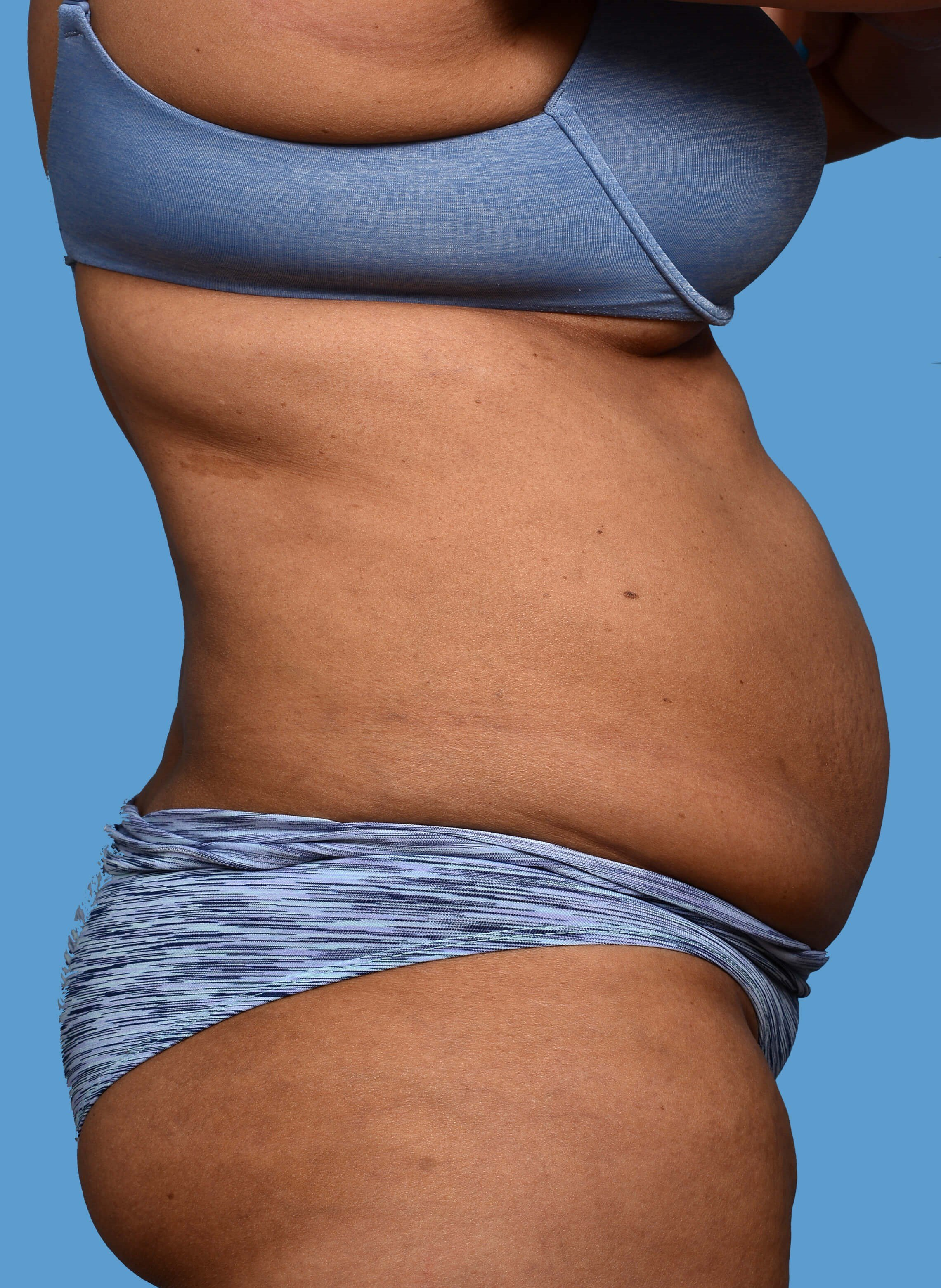 CoolSculpting - Right View After CoolSculpting Treatment