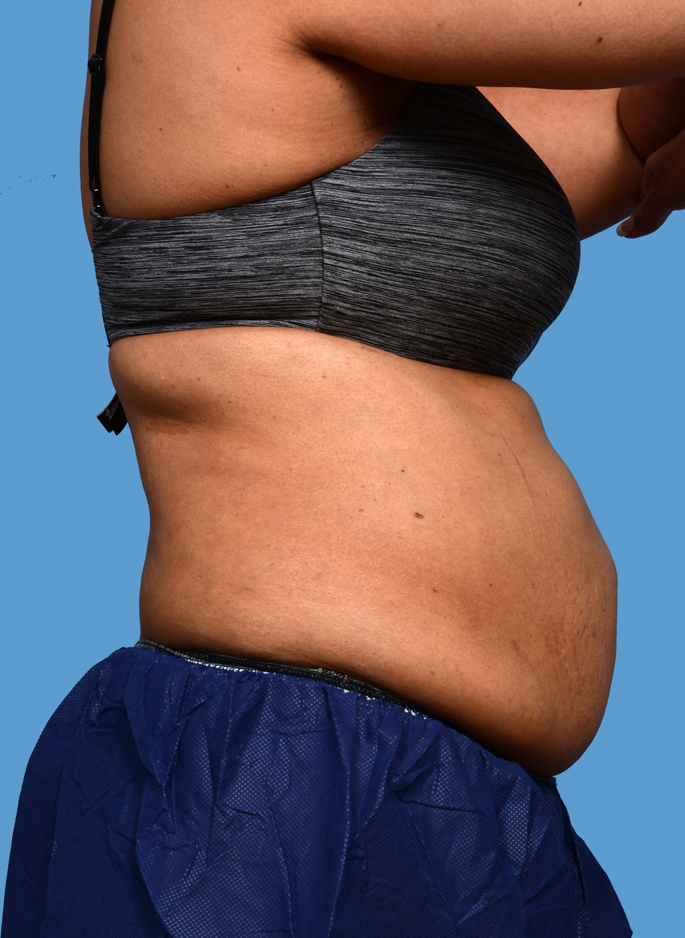 CoolSculpting - Right View Before CoolSculpting Treatment