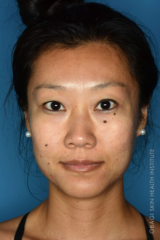 Acne Treatment - Front View Before ZO Customized Treatment