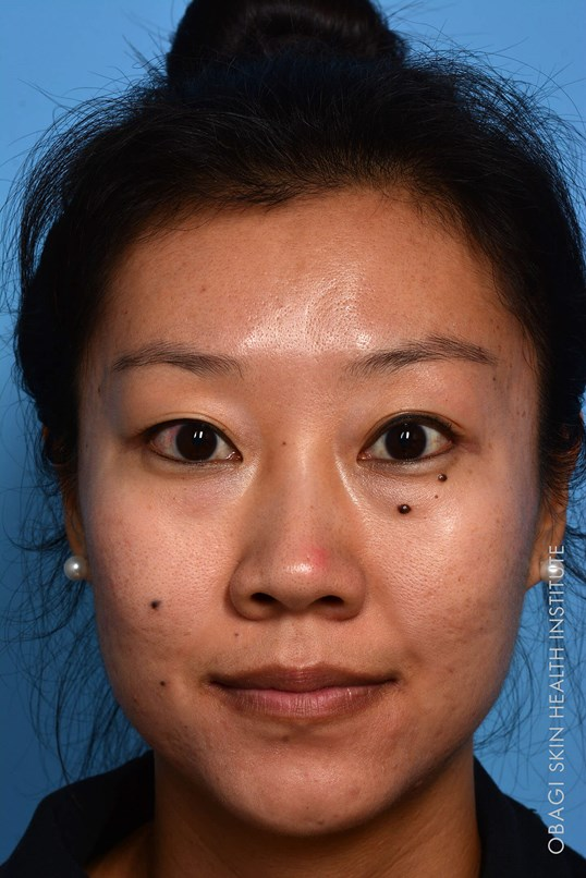 Acne Treatment - Front View After ZO Customized Treatment