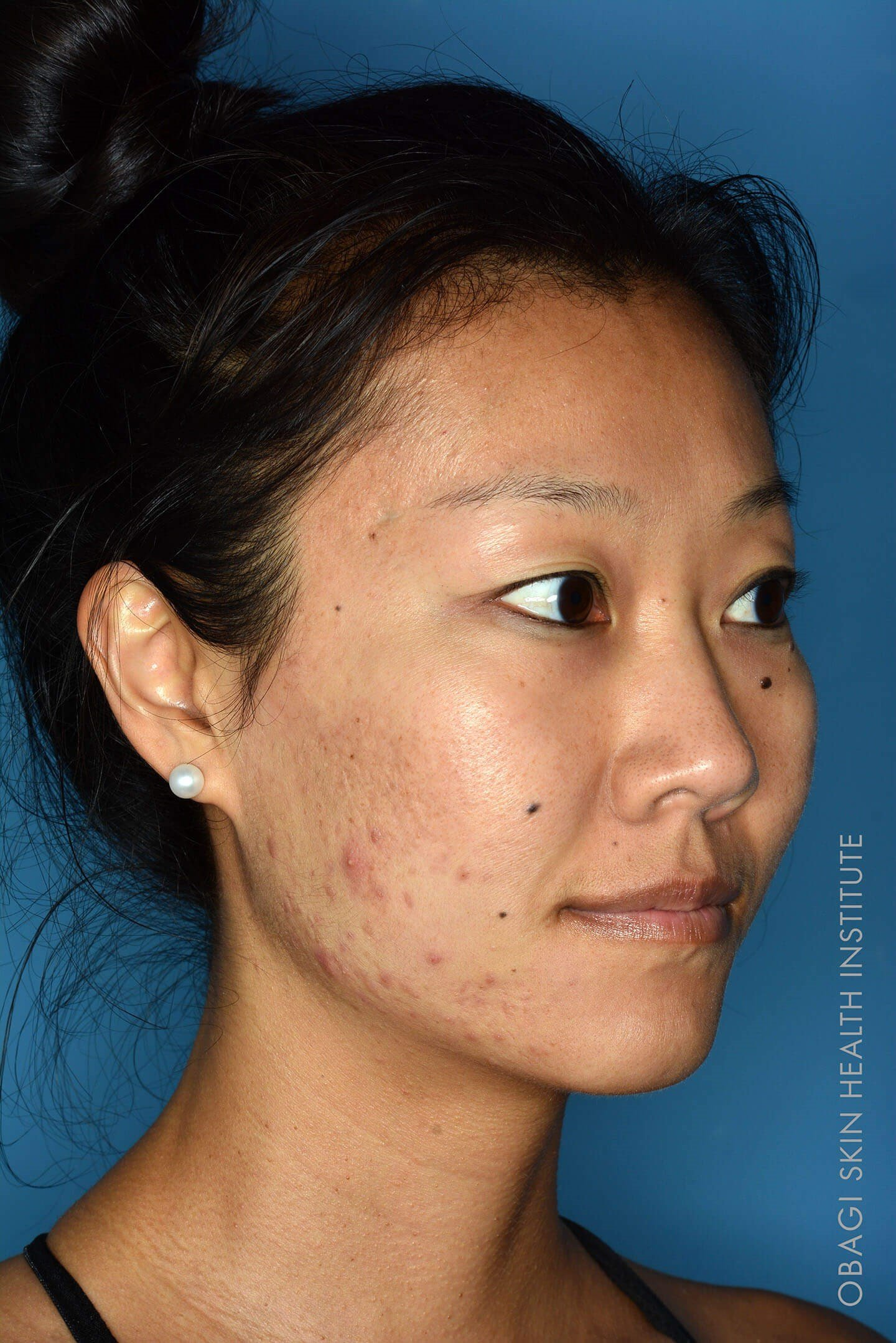 ZO® Custom Peel - Right View Before ZO Customized Treatment