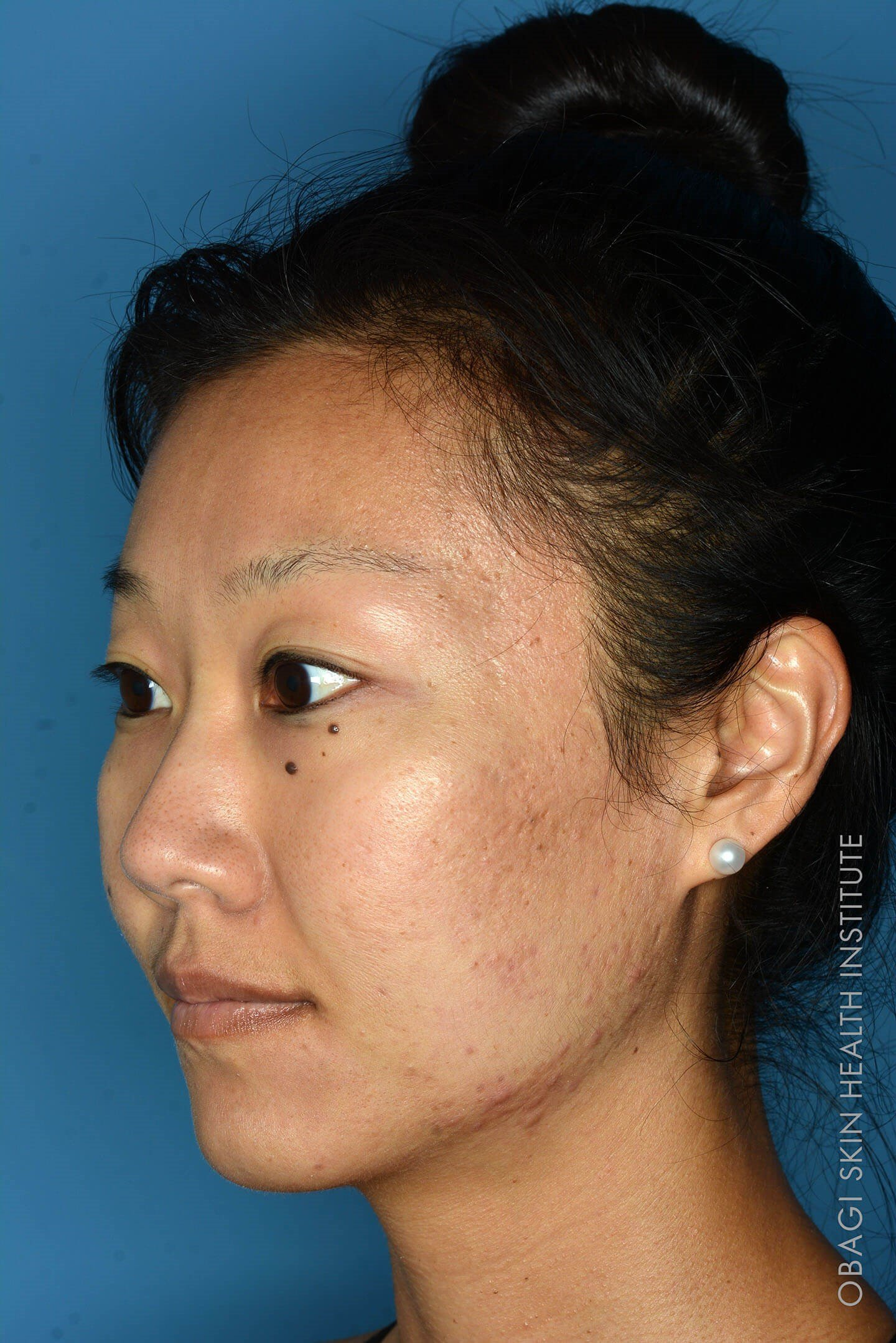 ZO® Custom Peel - Left View Before ZO Customized Treatment