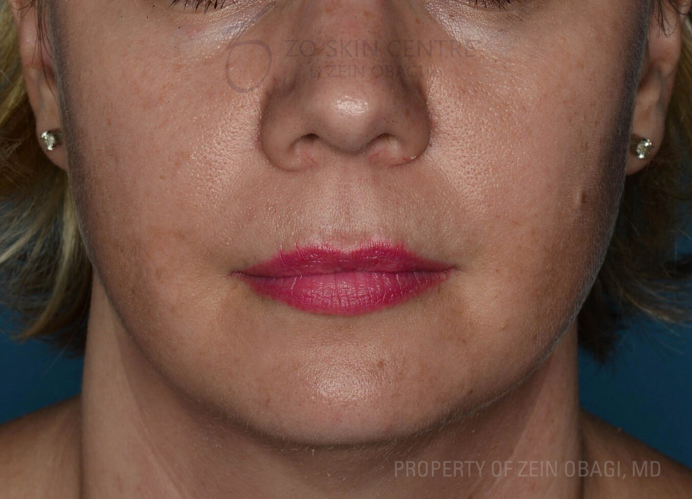 Front View Before Peel + Laser Treatment