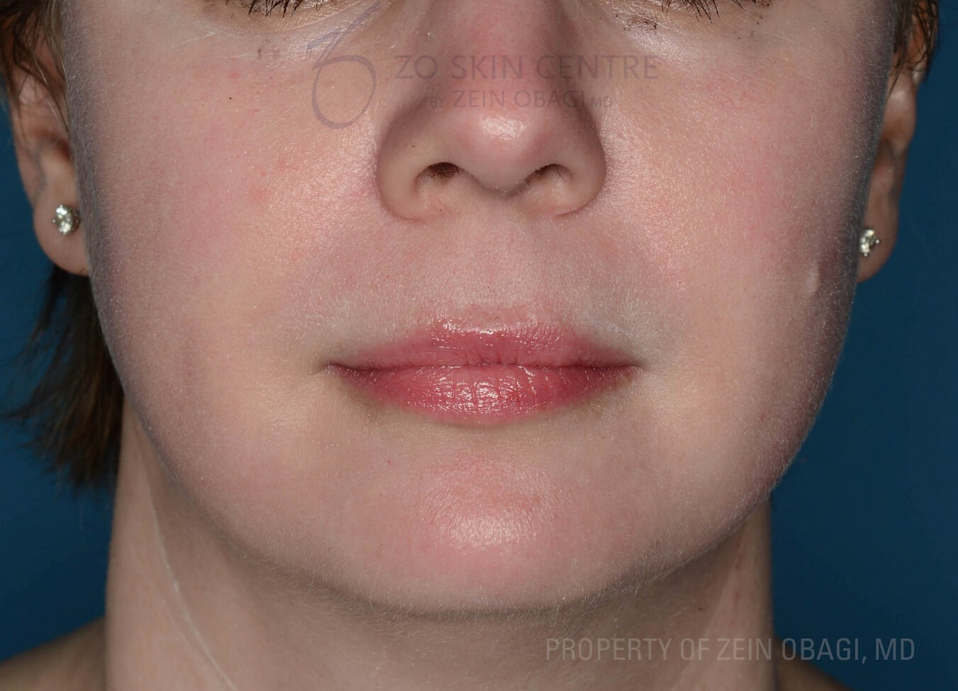 Front View After Peel + Laser Treatment