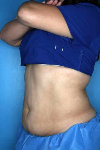 CoolSculpting - Belly + Flank Before CoolSculpting Treatment