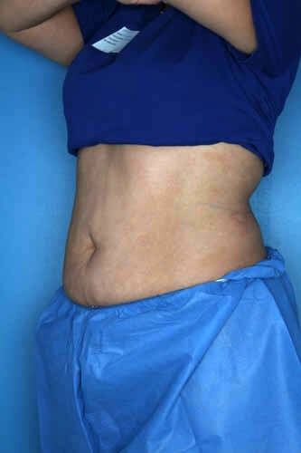 CoolSculpting - Belly + Flank After CoolSculpting Treatment