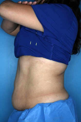 CoolSculpting - Left Flank Before CoolSculpting Treatment
