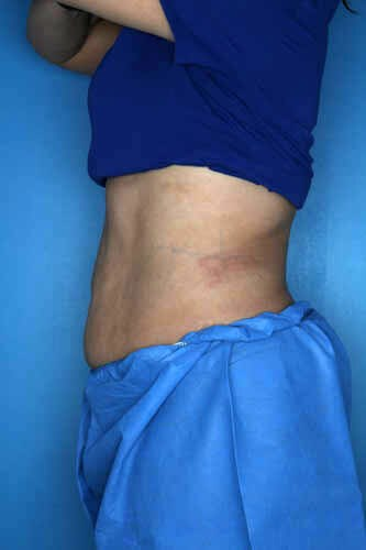 CoolSculpting - Left Flank After CoolSculpting Treatment