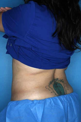 CoolSculpting - Flank + Back Before CoolSculpting Treatment
