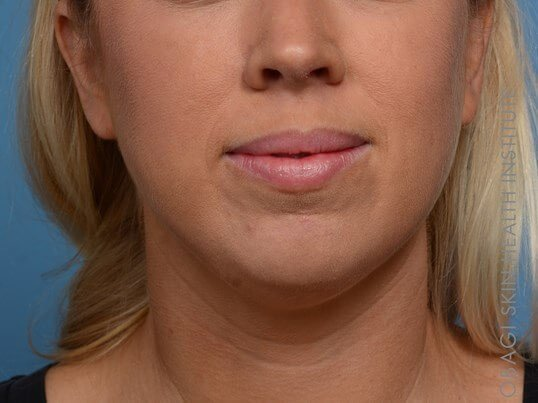 Kybella + Voluma - Front View Before Kybella + Voluma Chin
