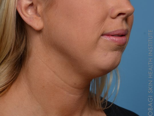 Kybella + Voluma - Right View Before Kybella + Voluma Chin