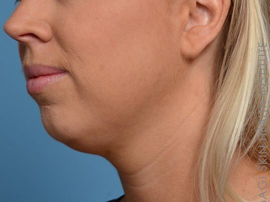 Kybella + Voluma - Left View Before