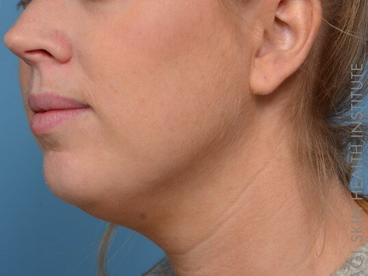 Kybella + Voluma - Left View After