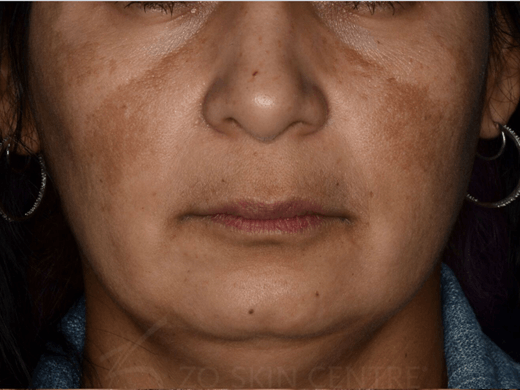 Melasma + Rosacea - Front View Before ZO Customized Treatment