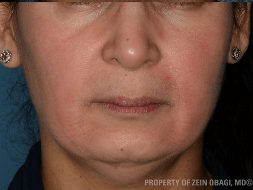 Melasma + Rosacea - Front View After ZO Customized Treatment