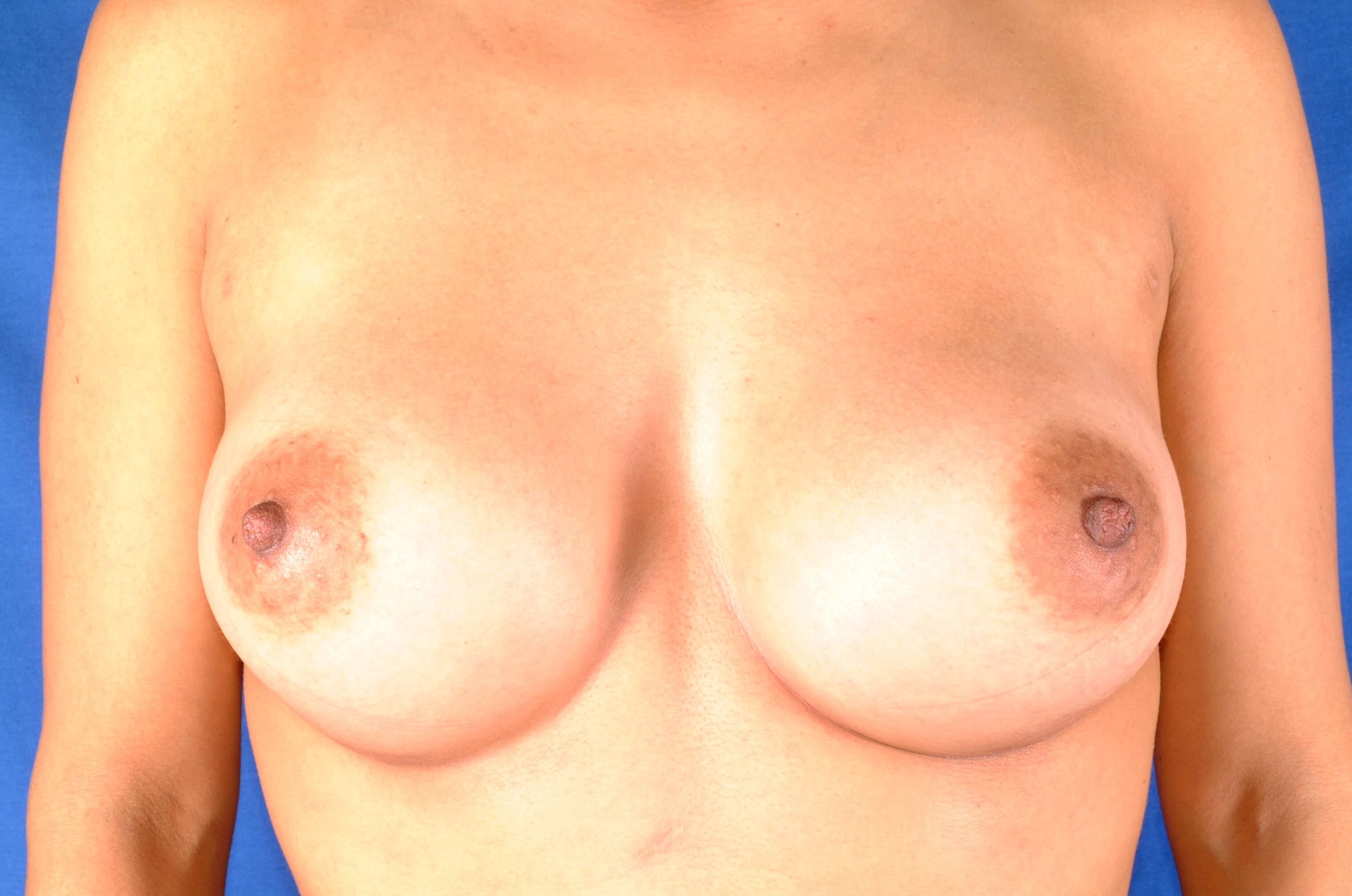 Newport Beach Breast Aug/Rhino After Front View