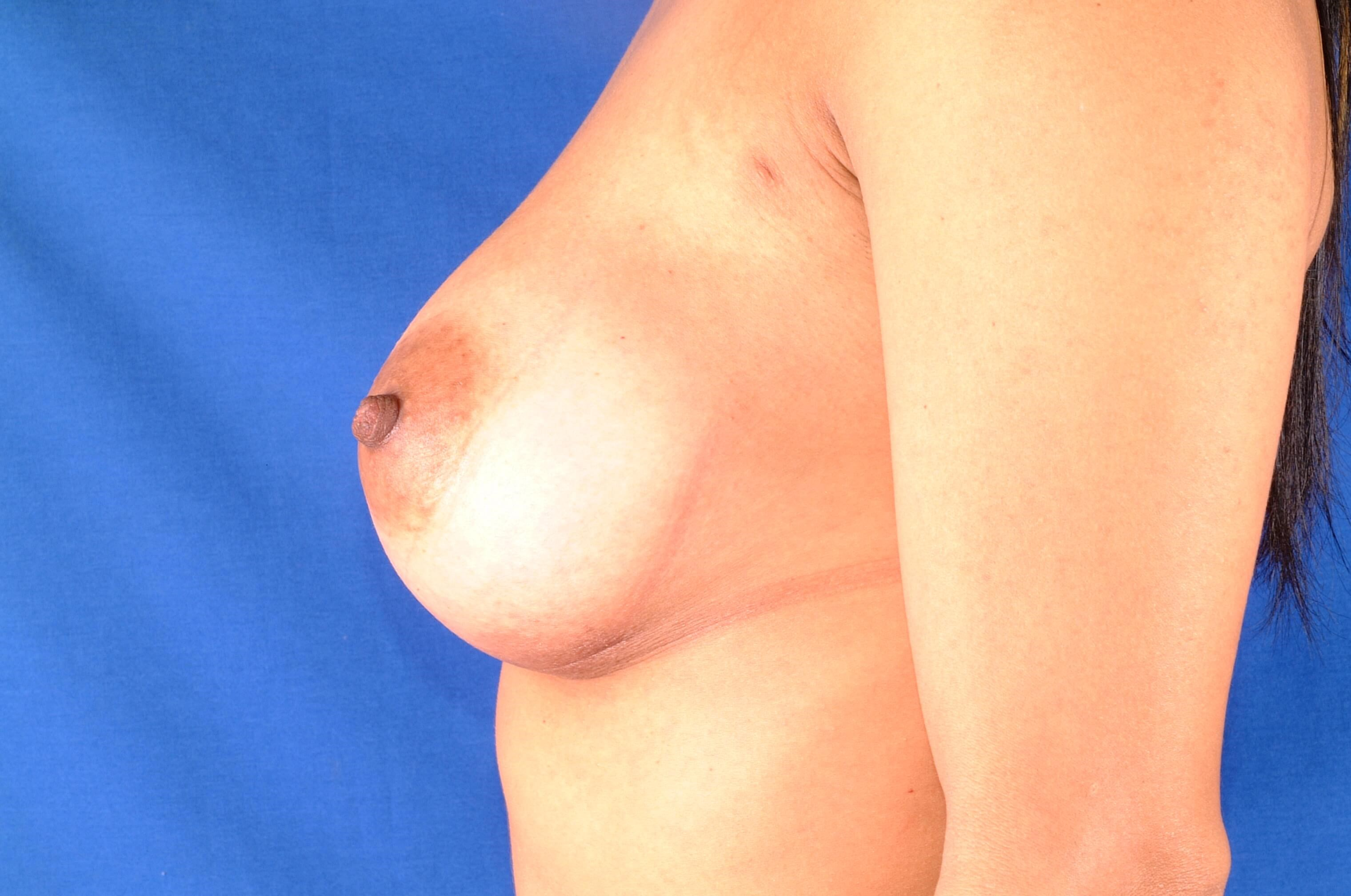 Newport Beach Breast Aug/Rhino After Side View