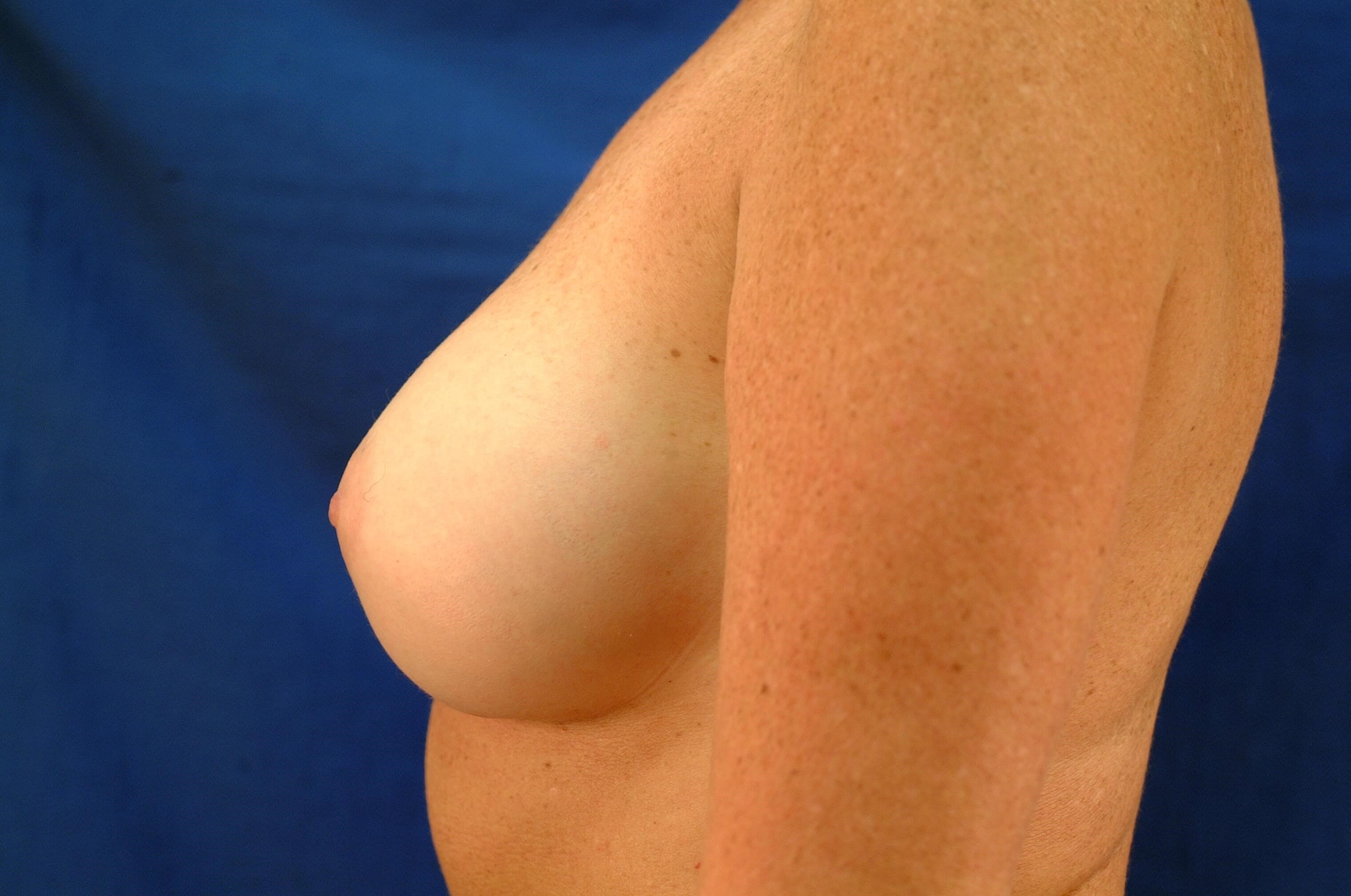 Newport Beach Breast Aug After Side View