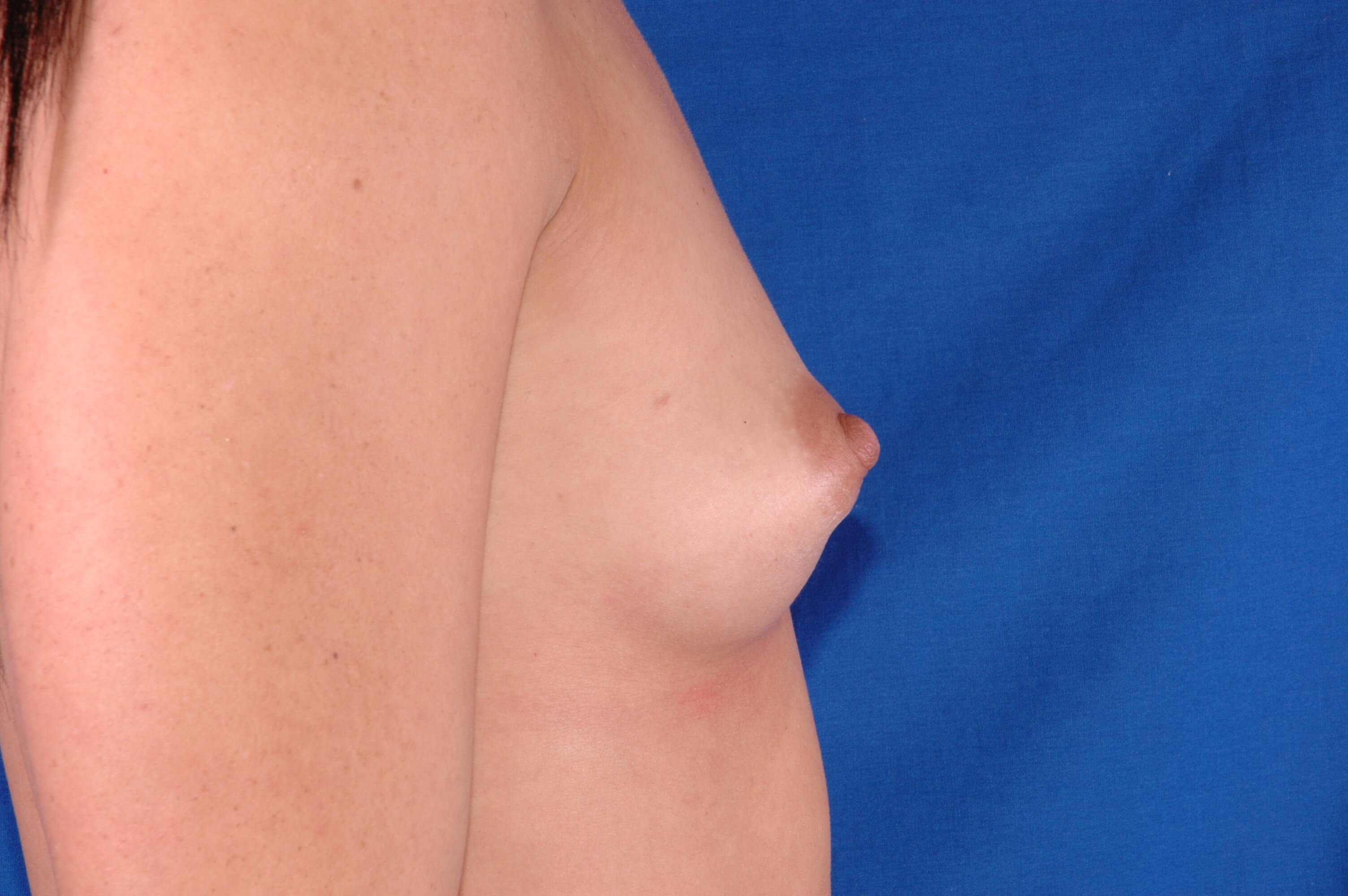 Newport Beach Breast Aug Before