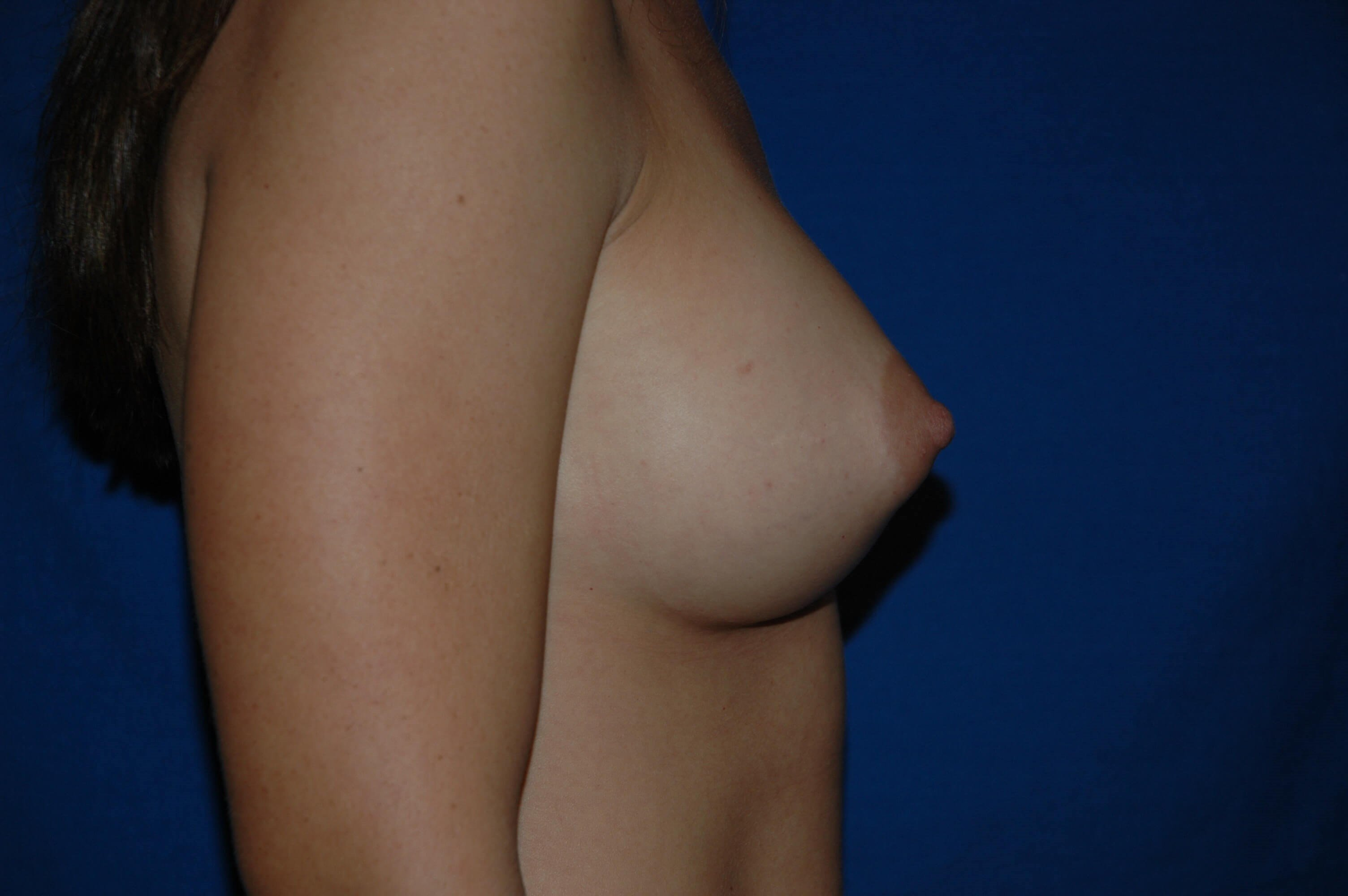 Newport Beach Breast Aug After