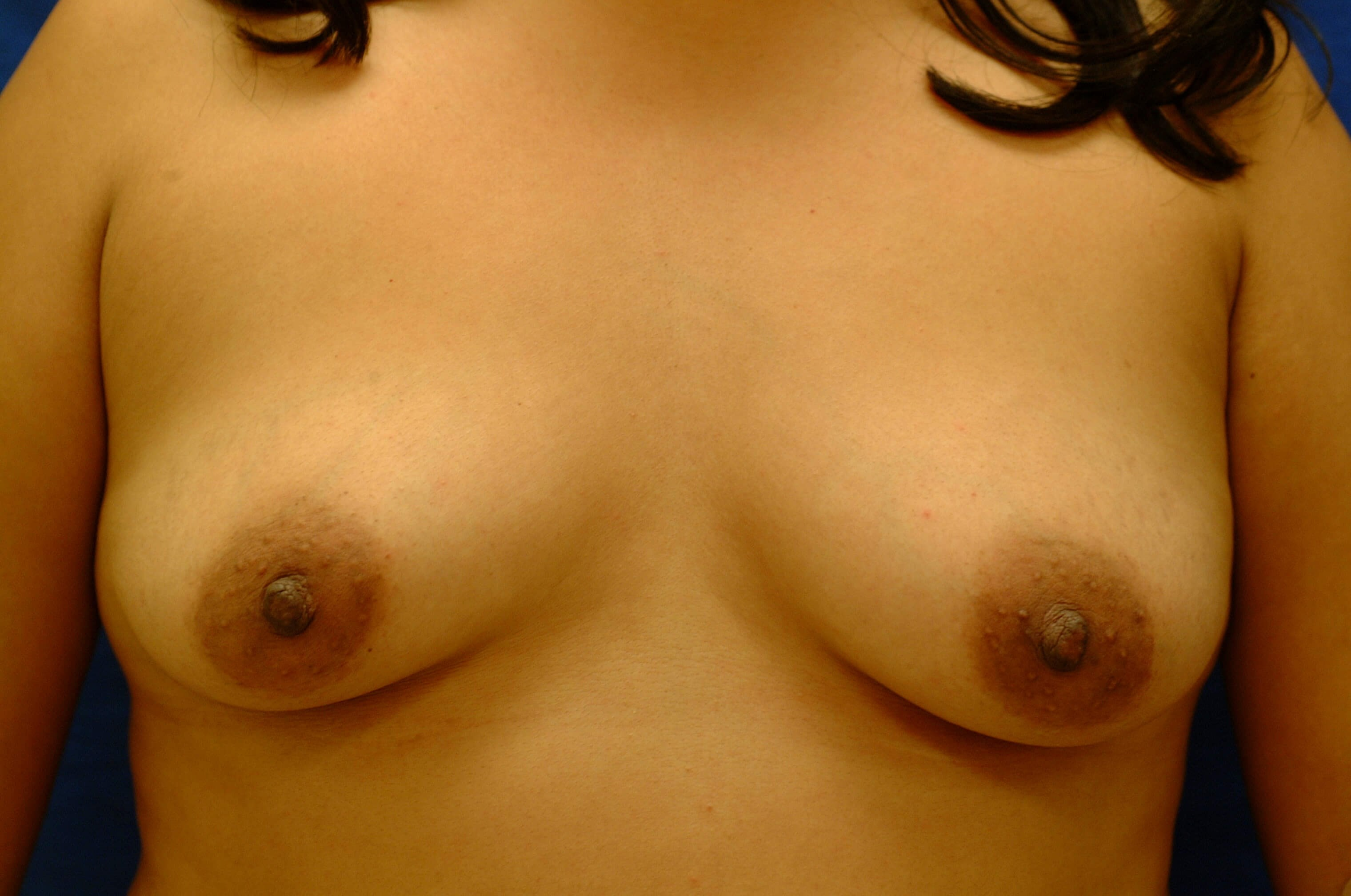 Newport Beach Breast Aug Before Front View