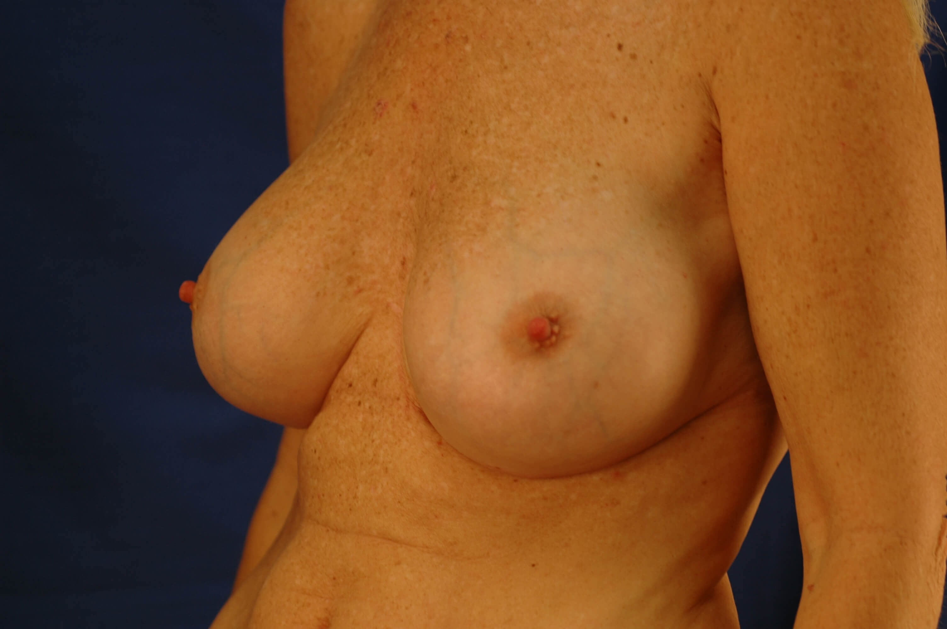 Newport Beach Breast Aug After Oblique