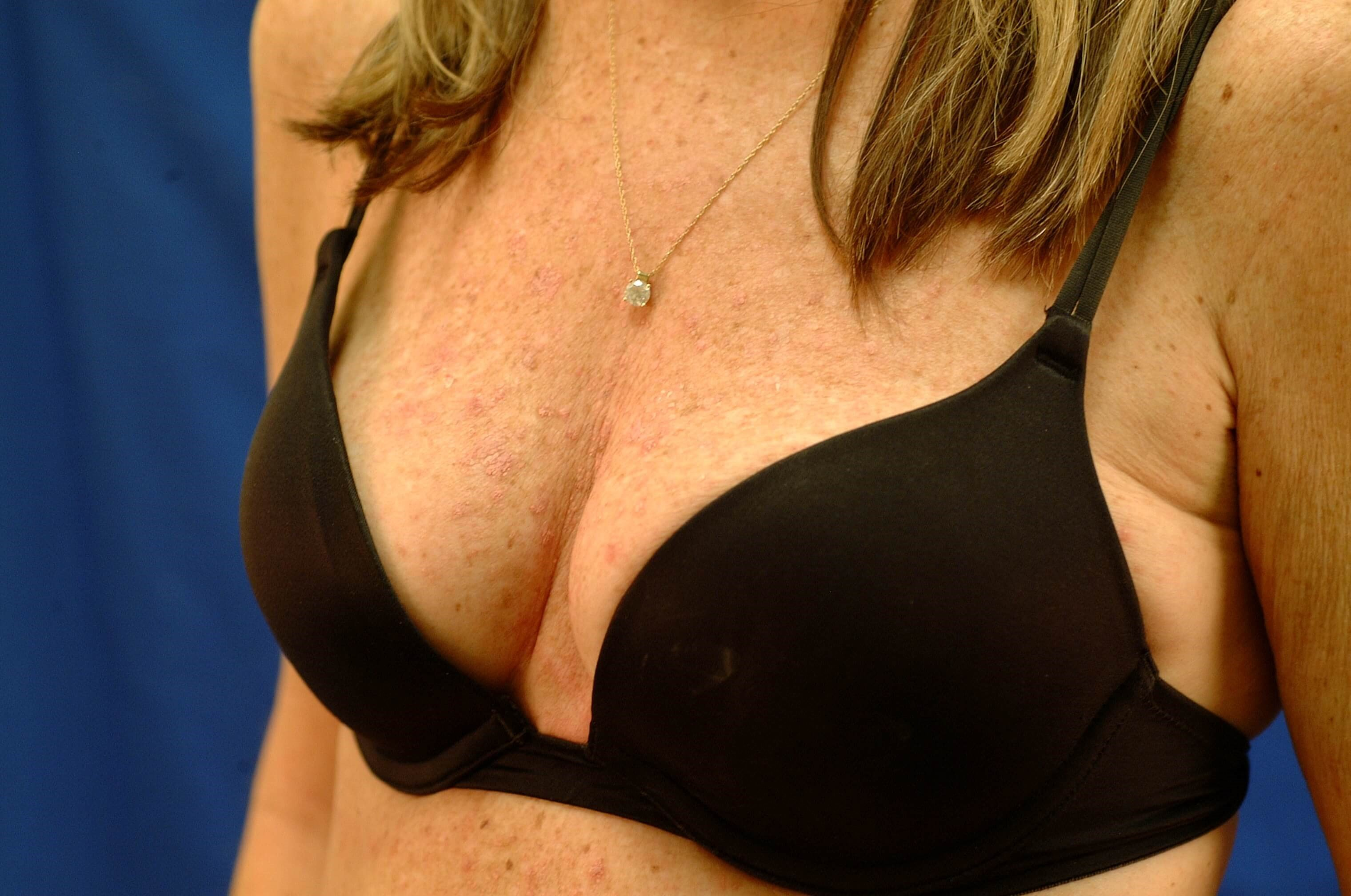Newport Beach Breast Aug Before Oblique