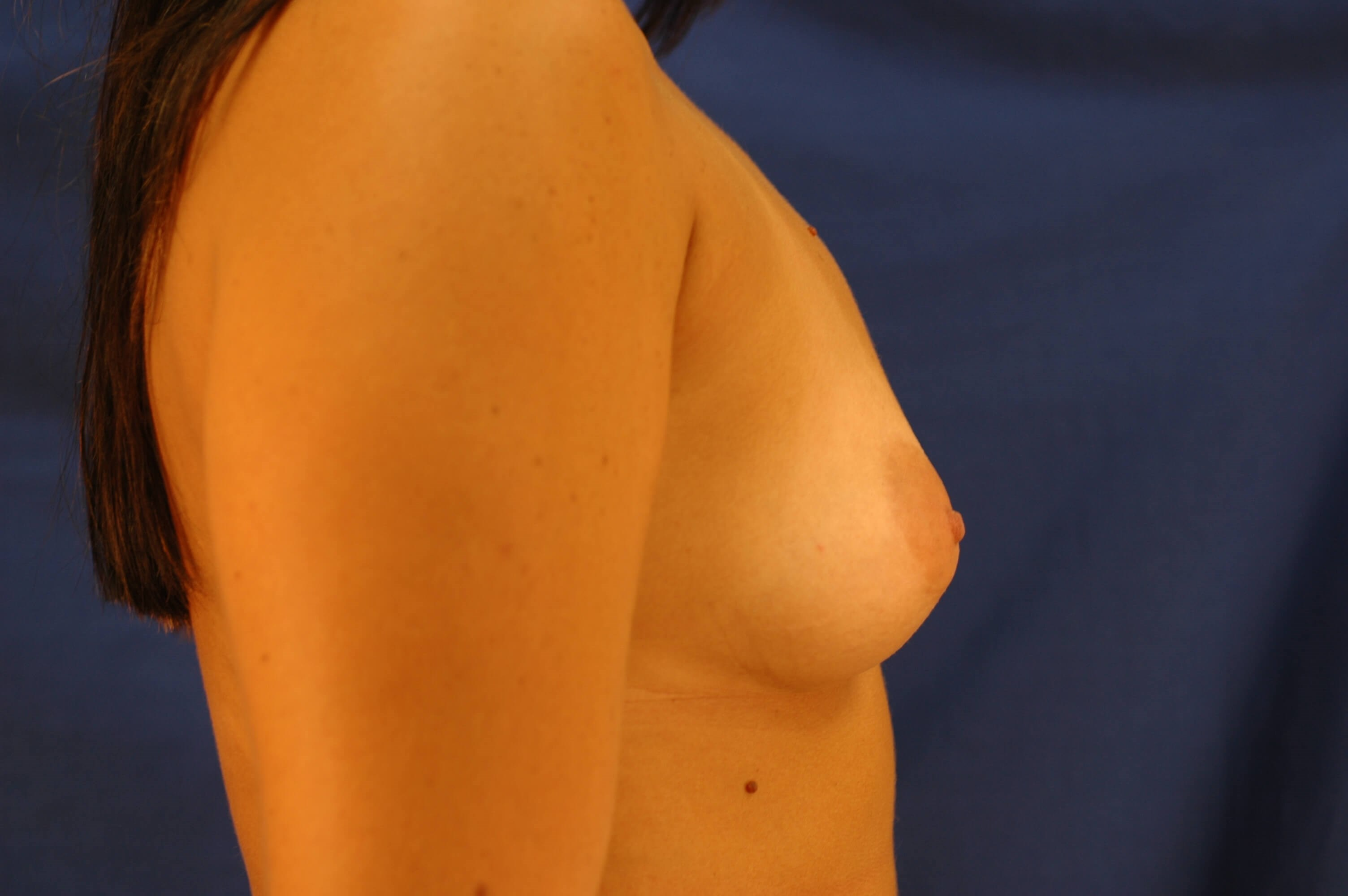 Newport Beach Breast Aug Before Side View