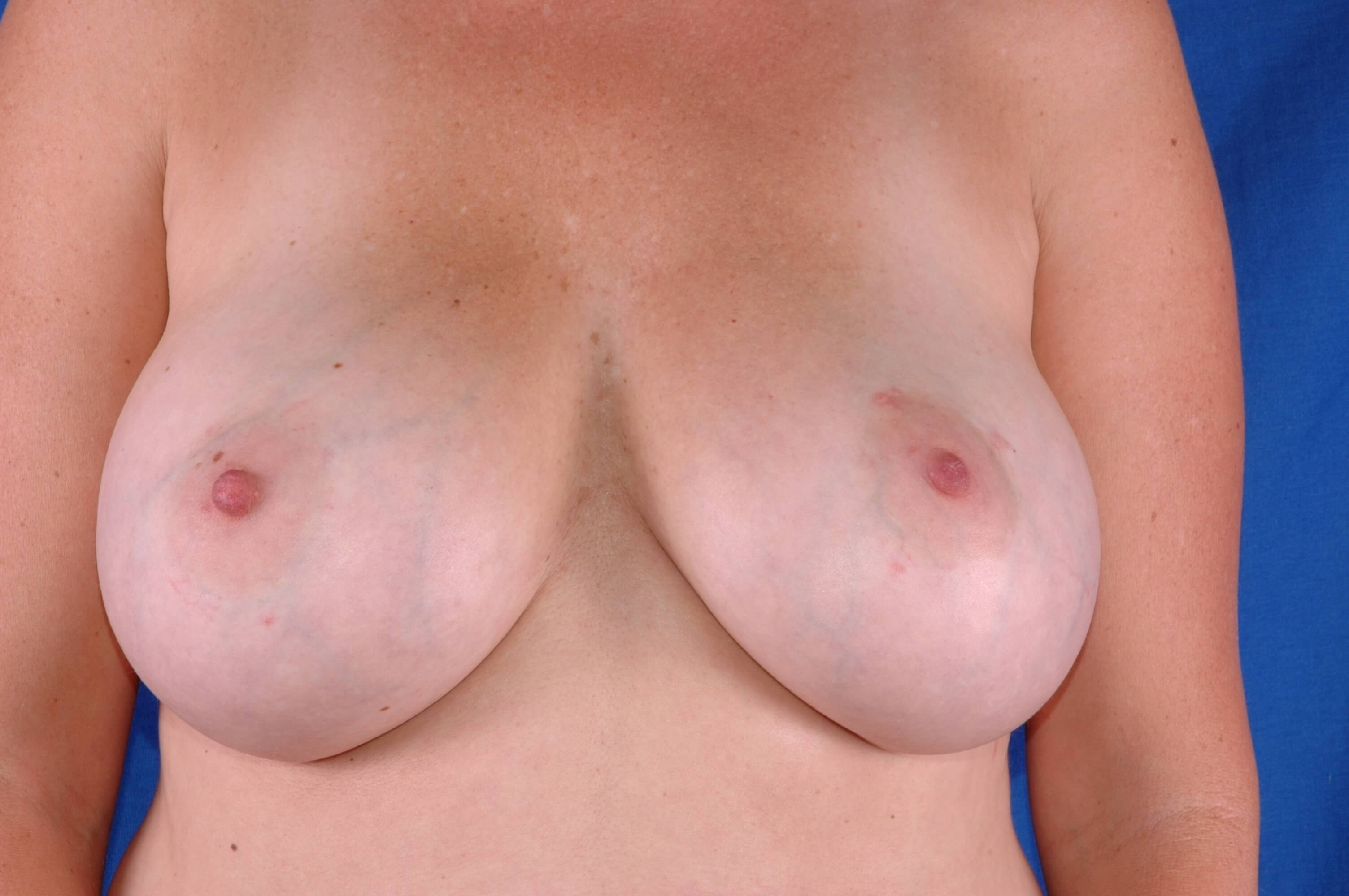 Newport Beach Breast Aug After Front View