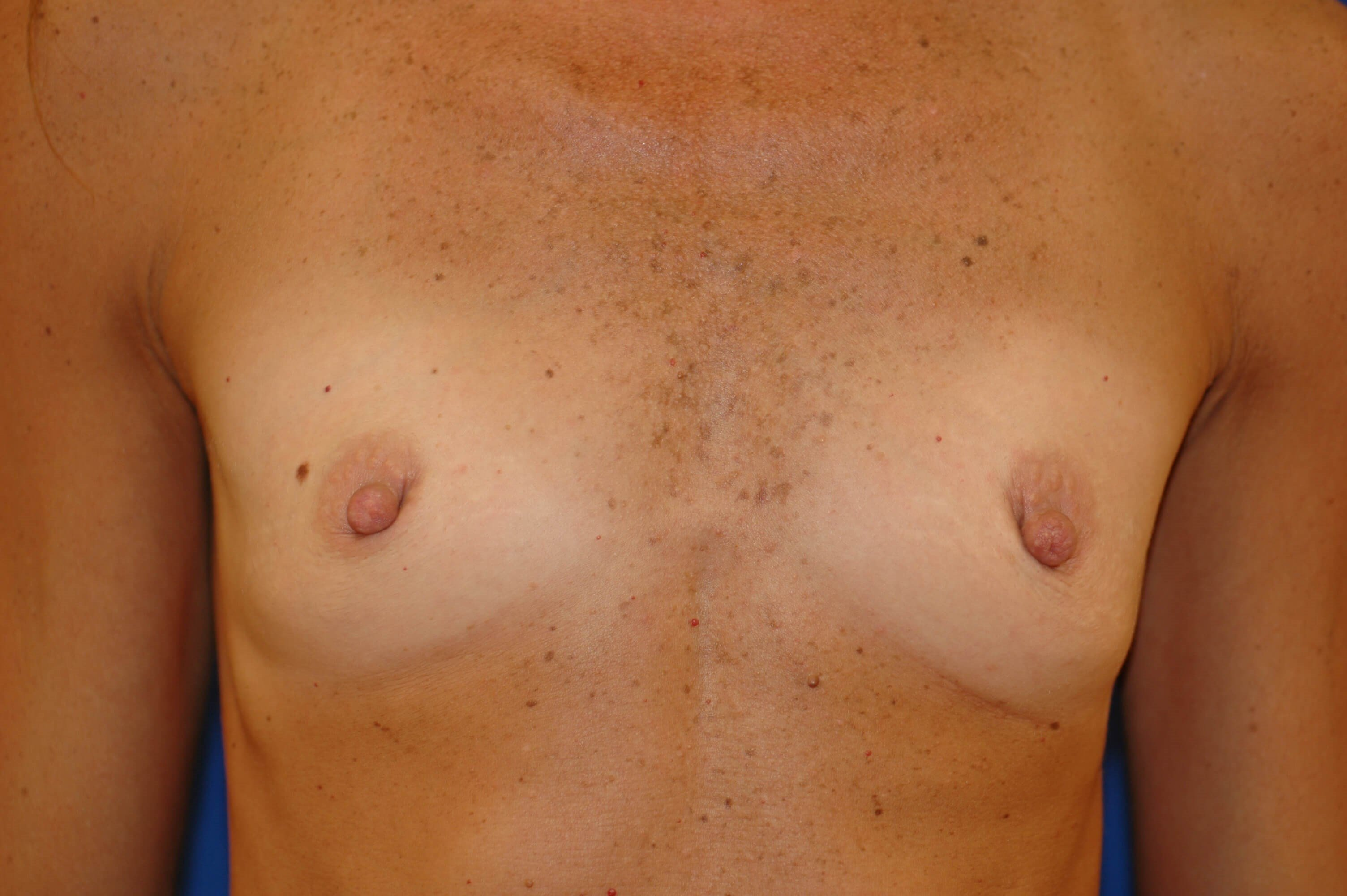 SanClemente BreastAugmentation Before Front View