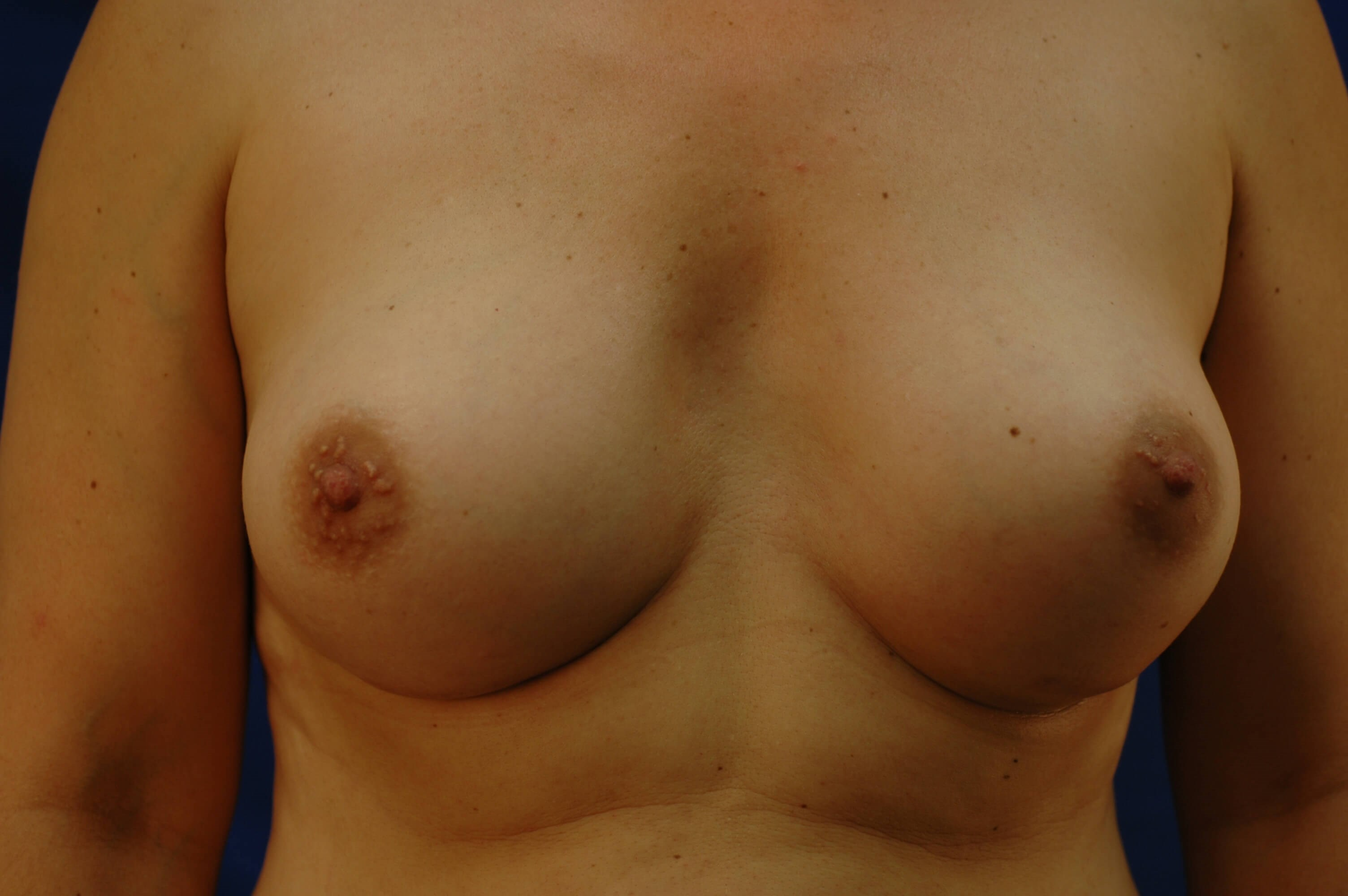 SanClemente BreastAugmentation After Front View