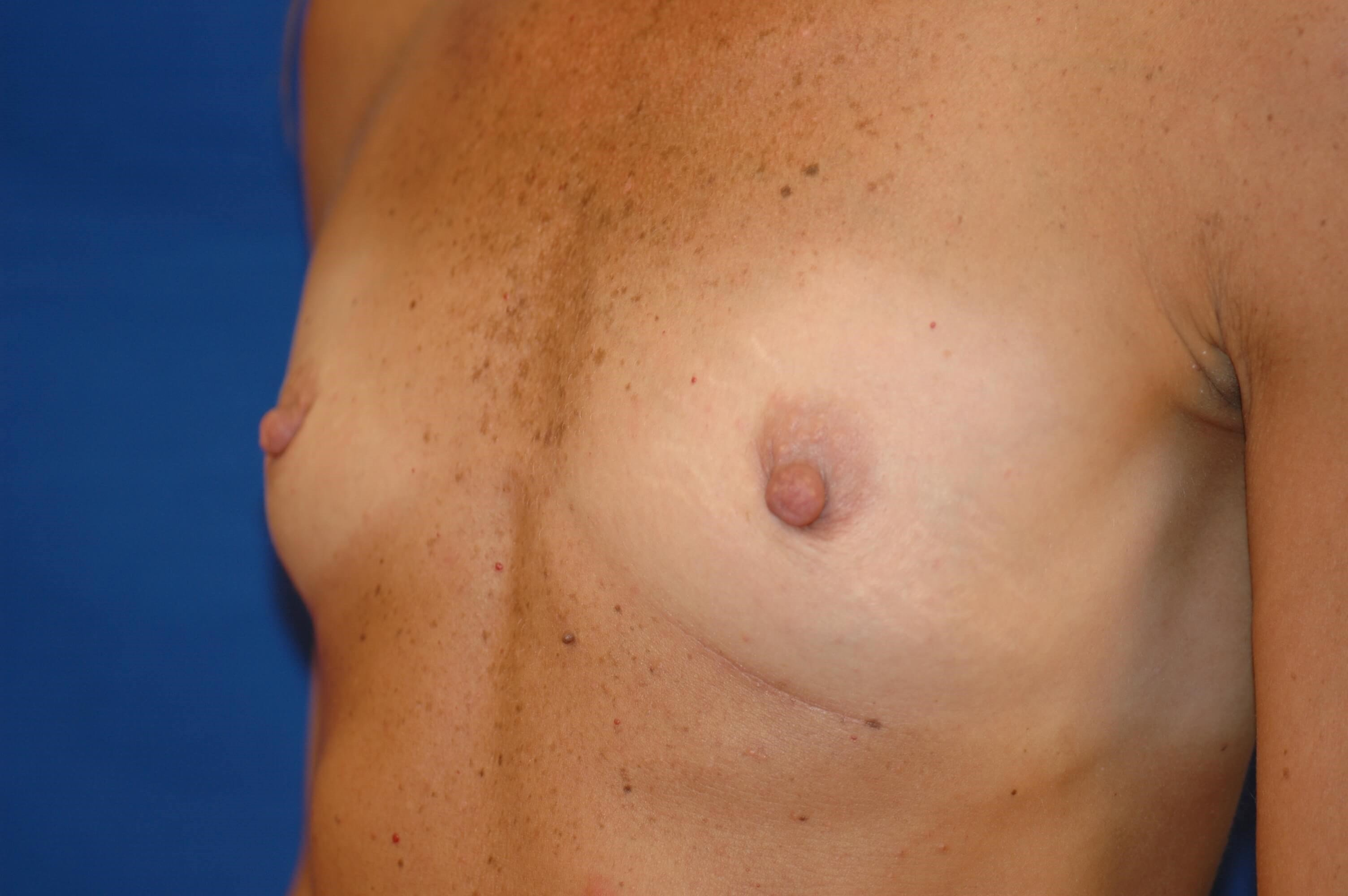 SanClemente BreastAugmentation Before Oblique