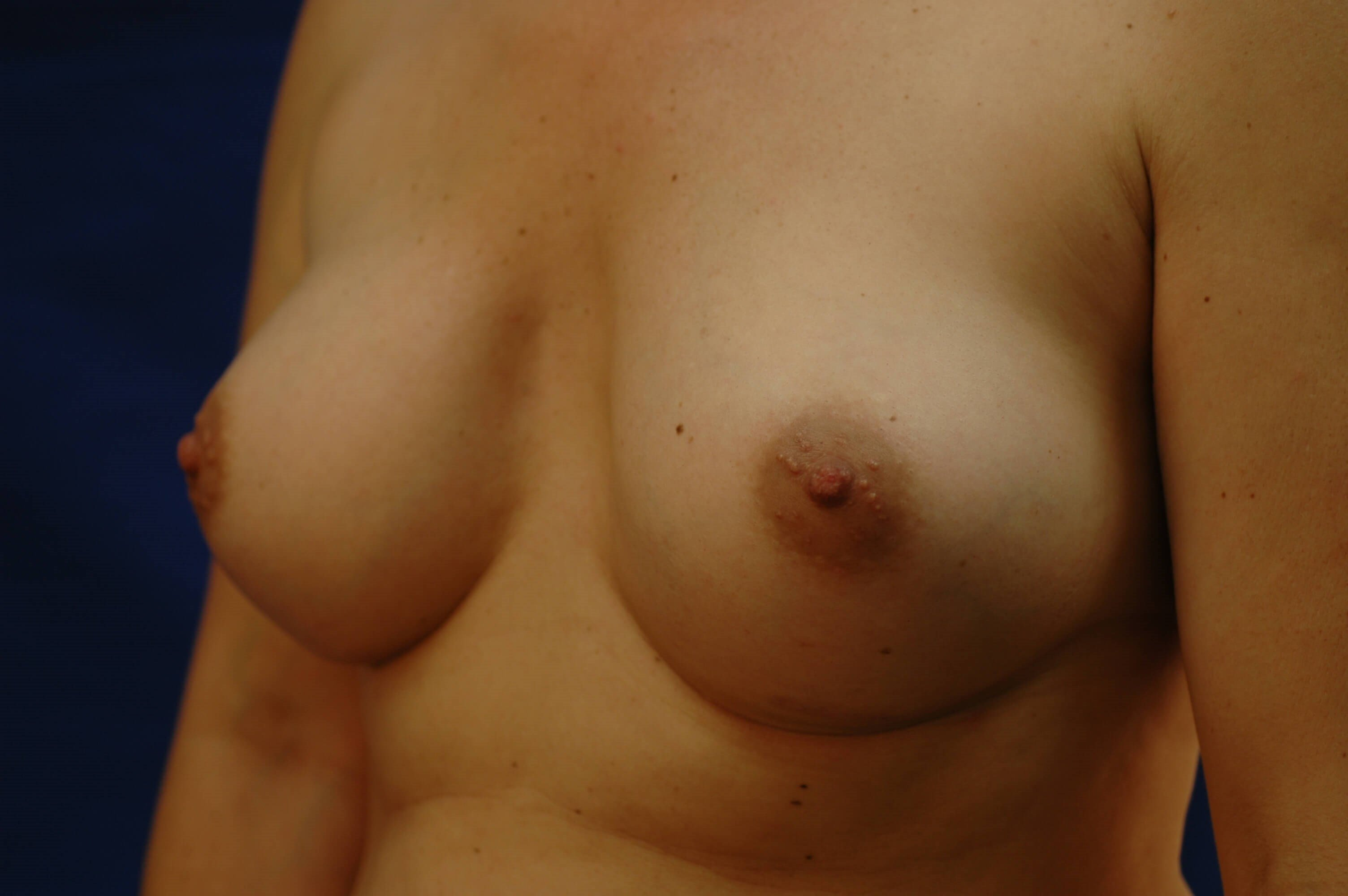 SanClemente BreastAugmentation After Oblique