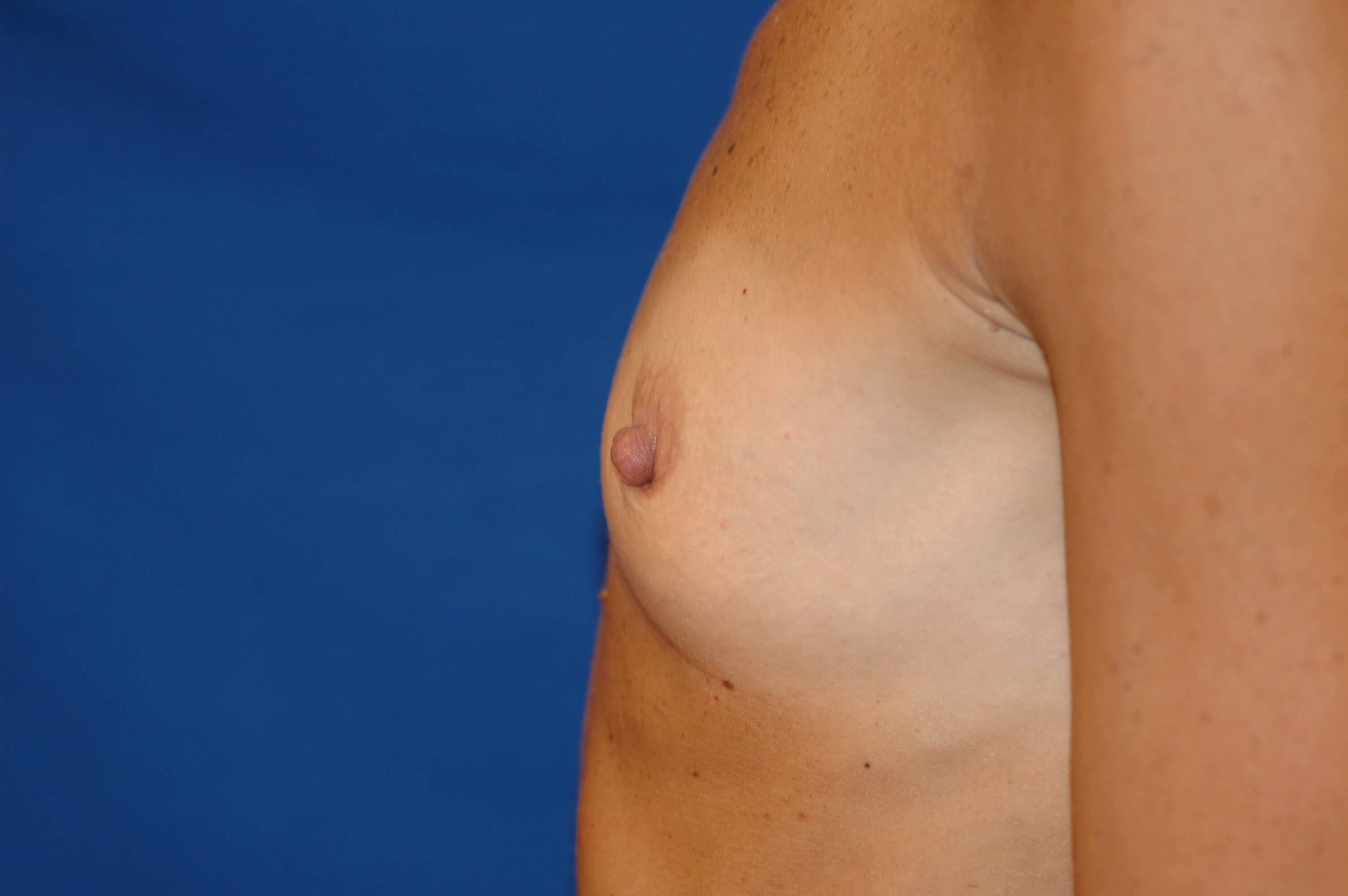 SanClemente BreastAugmentation Before Side View