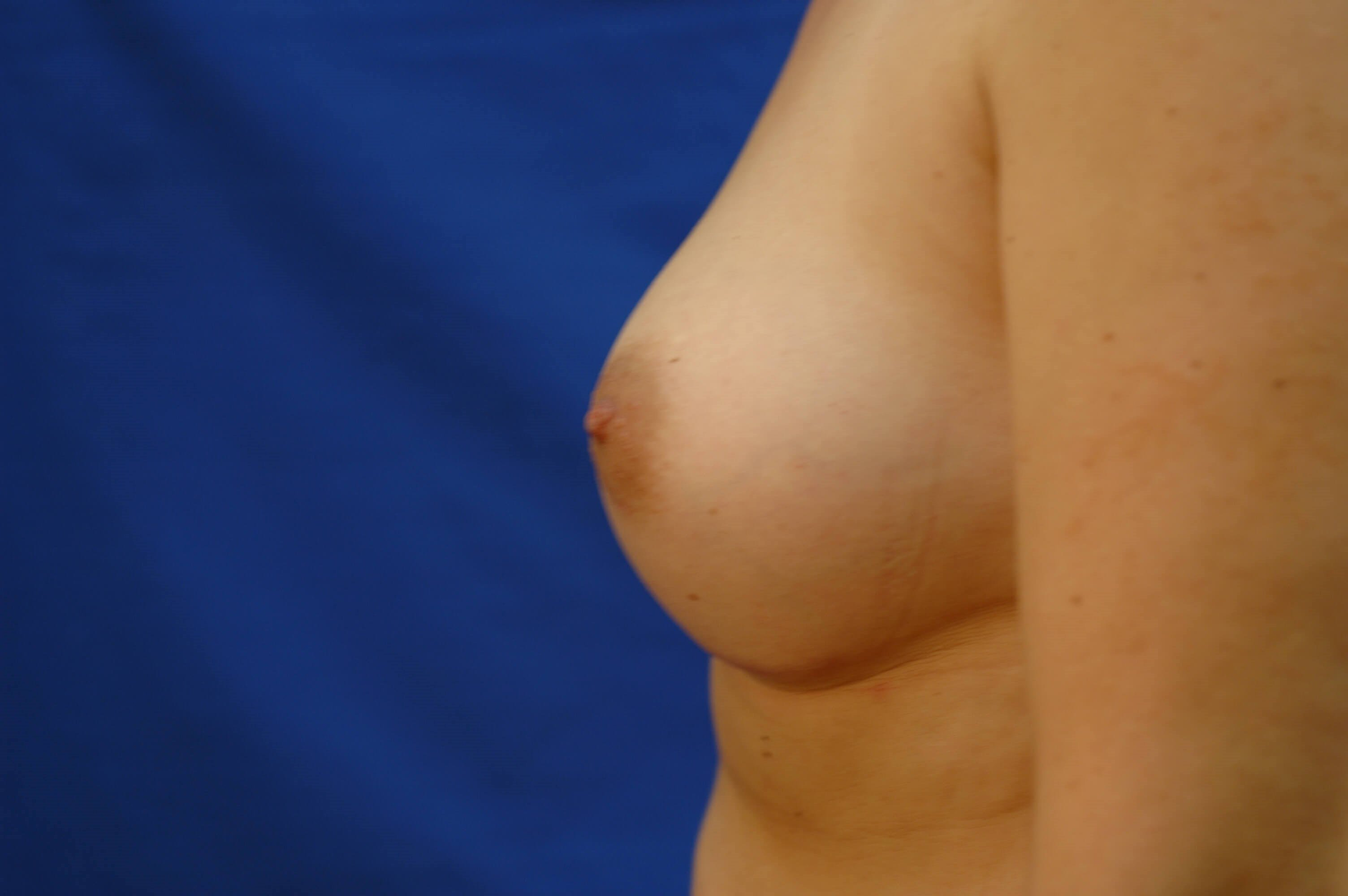 SanClemente BreastAugmentation After Side View