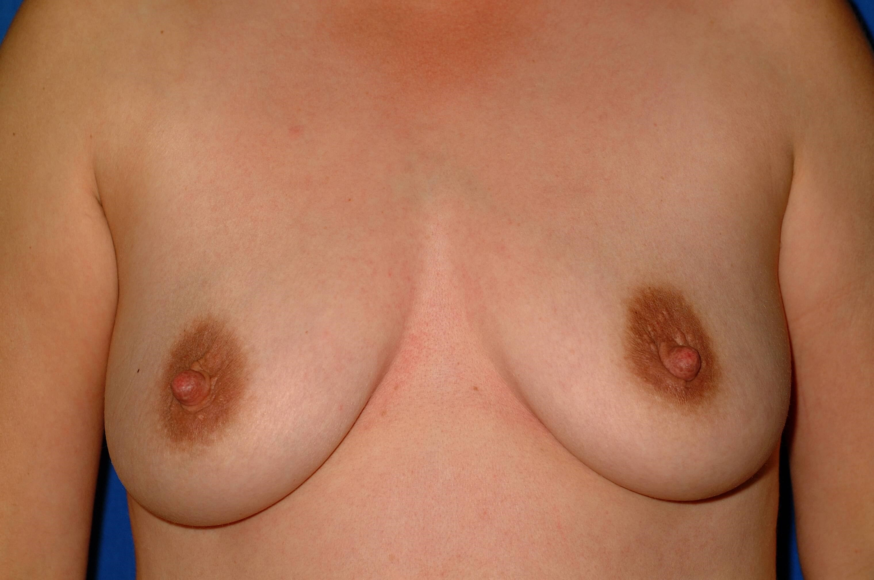 Newport Beach Breast Aug Front Before