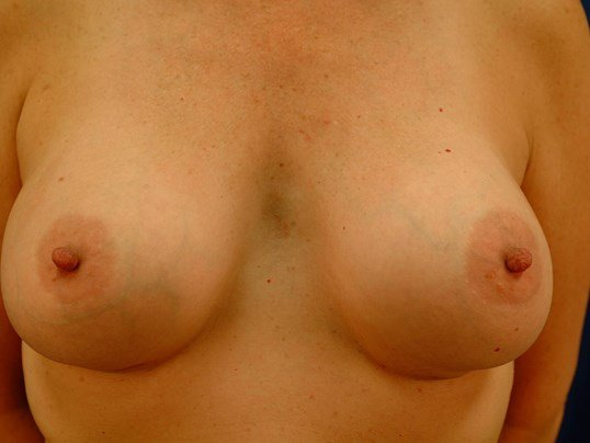Newport Beach Breast Aug Front After