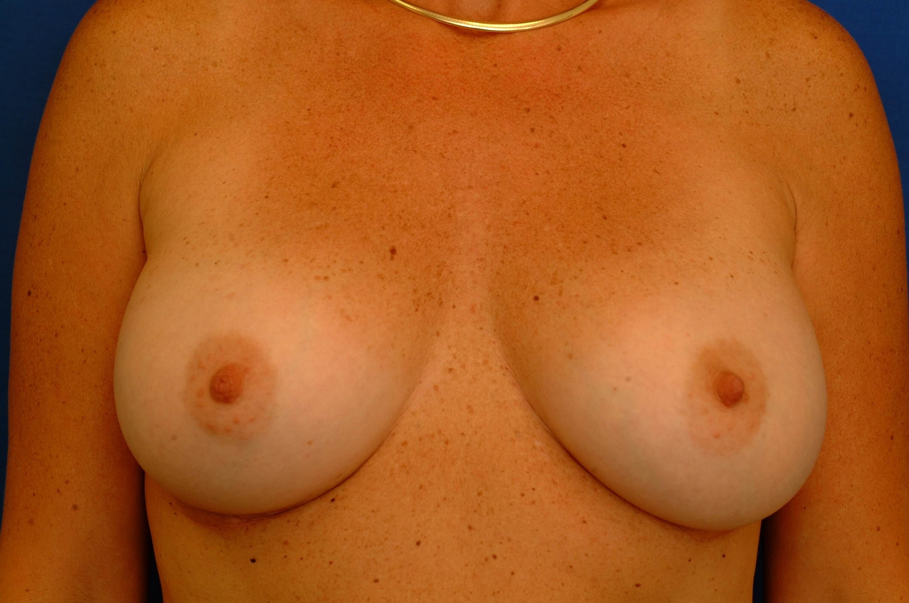 Newport Beach Breast Aug Front View After
