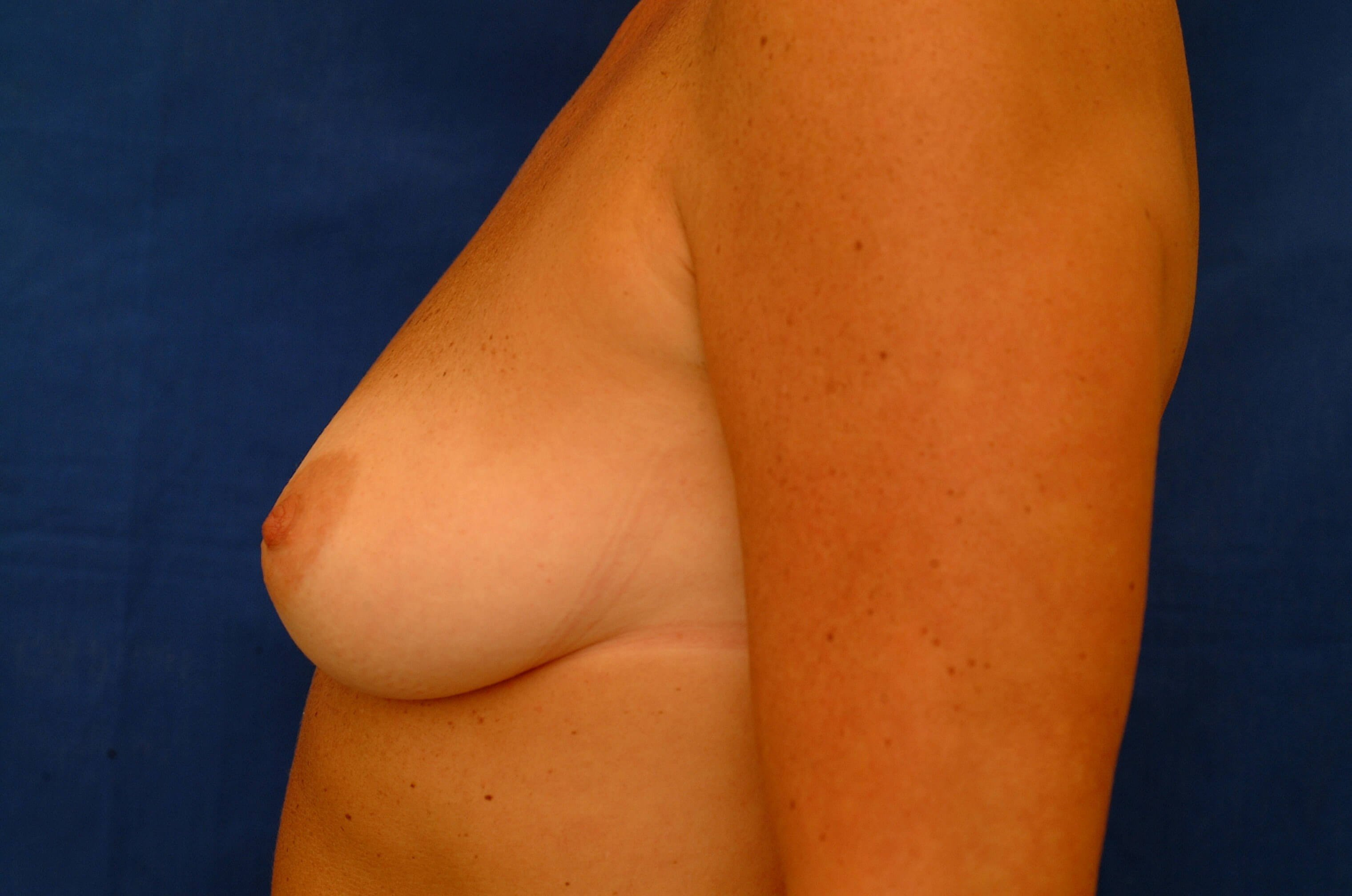 Newport Beach Breast Aug Side View Before