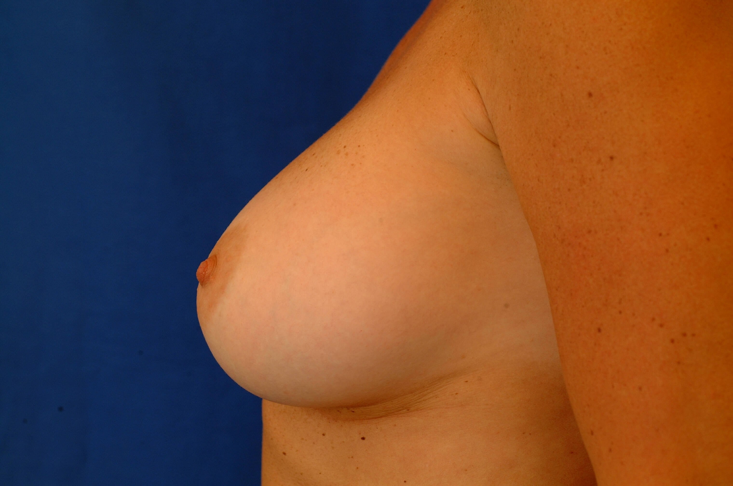 Newport Beach Breast Aug Side View Bent After