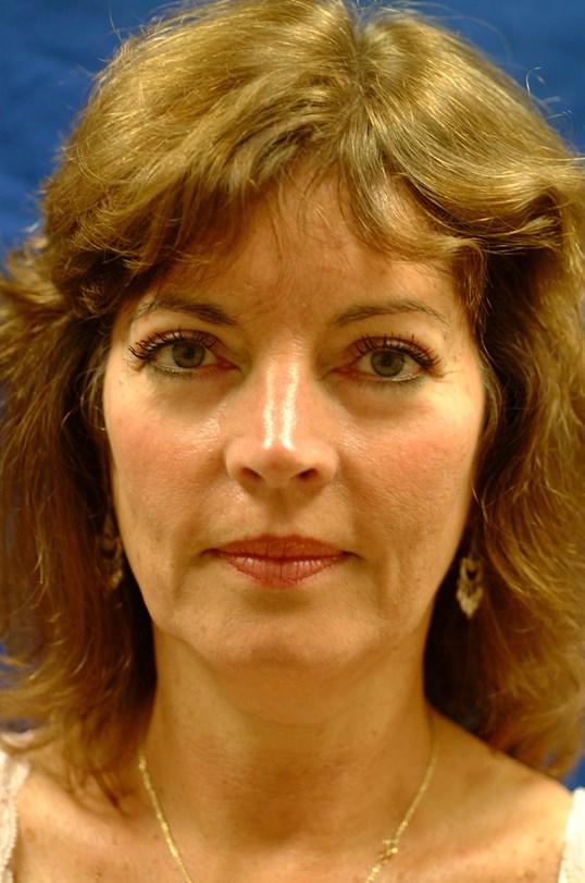 Dr. Bunkis Facial Rejuvenation Before Front View