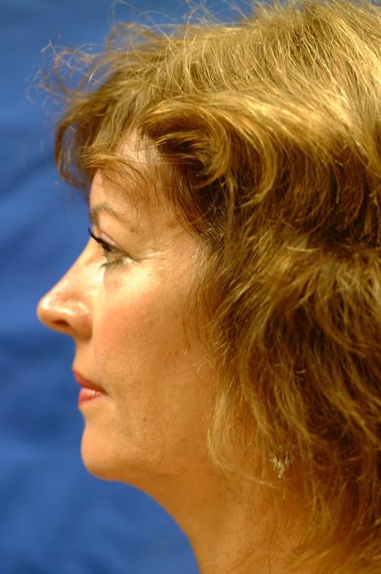 Dr. Bunkis Facial Rejuvenation Before Side View